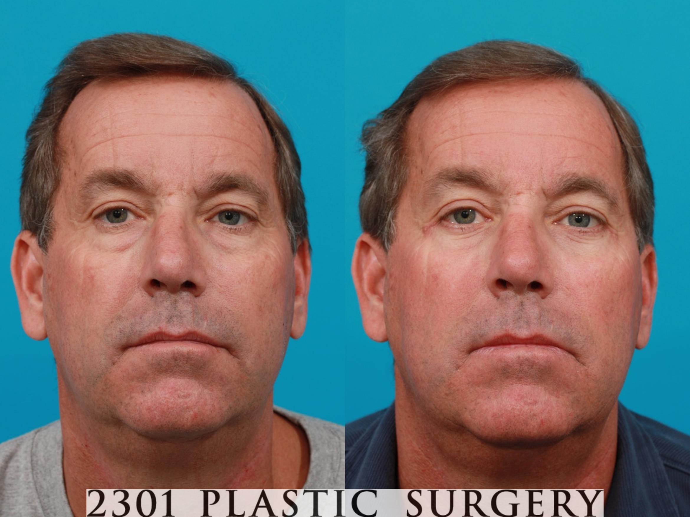 Blepharoplasty Case 119 Before & After View #1 | Fort Worth & Frisco, Texas | Michael A. Bogdan, MD, FACS