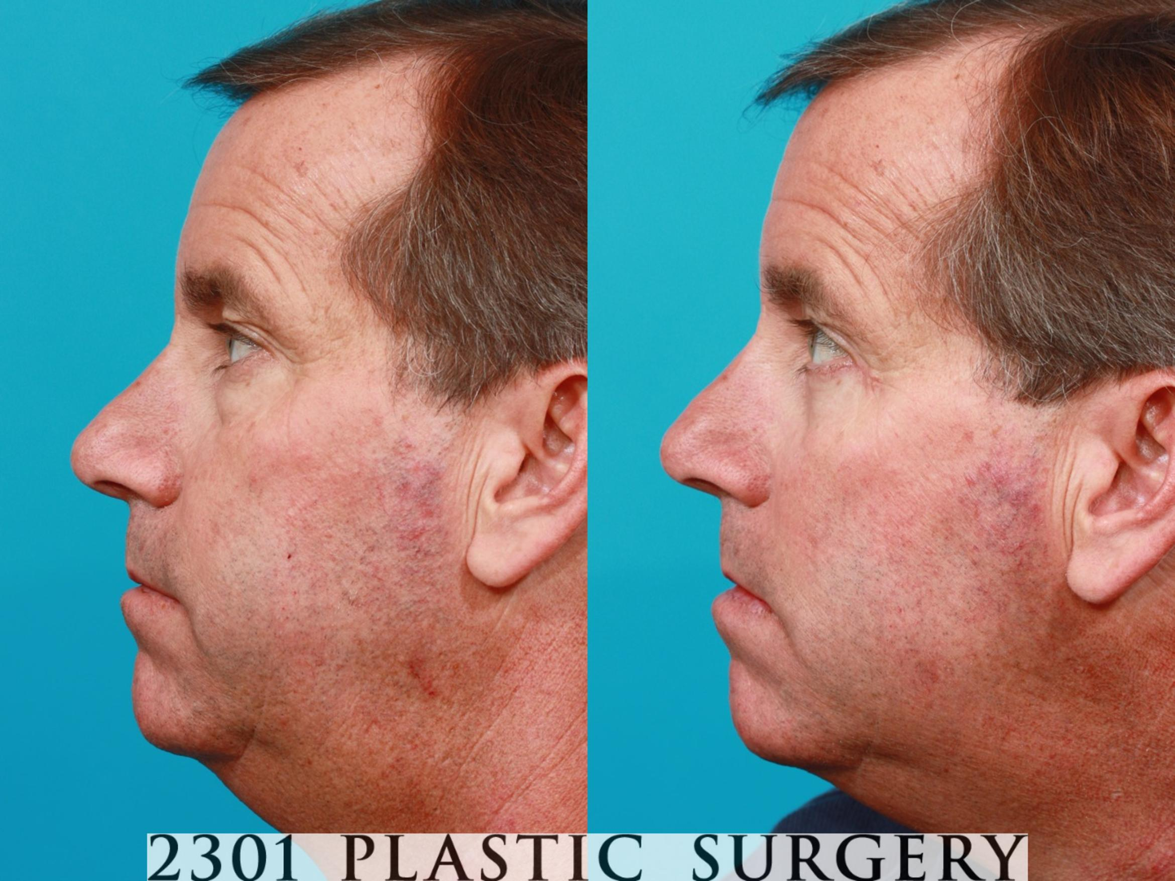 Blepharoplasty Before & After Photos Patient 119 ...