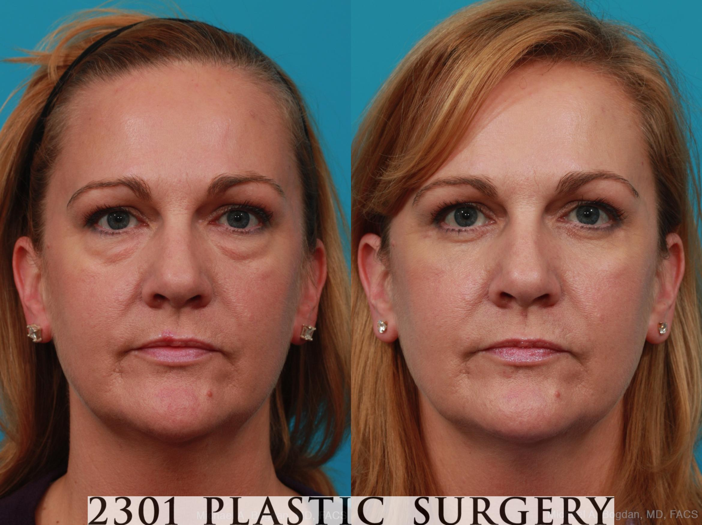 Blepharoplasty Case 270 Before & After View #1 | Fort Worth & Frisco, Texas | Michael A. Bogdan, MD, FACS