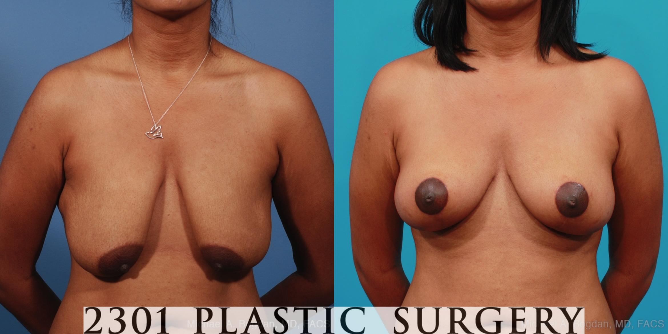 Breast Lift (Mastopexy) Case 253 Before & After View #1 | Southlake, Texas | Michael A. Bogdan, MD, FACS