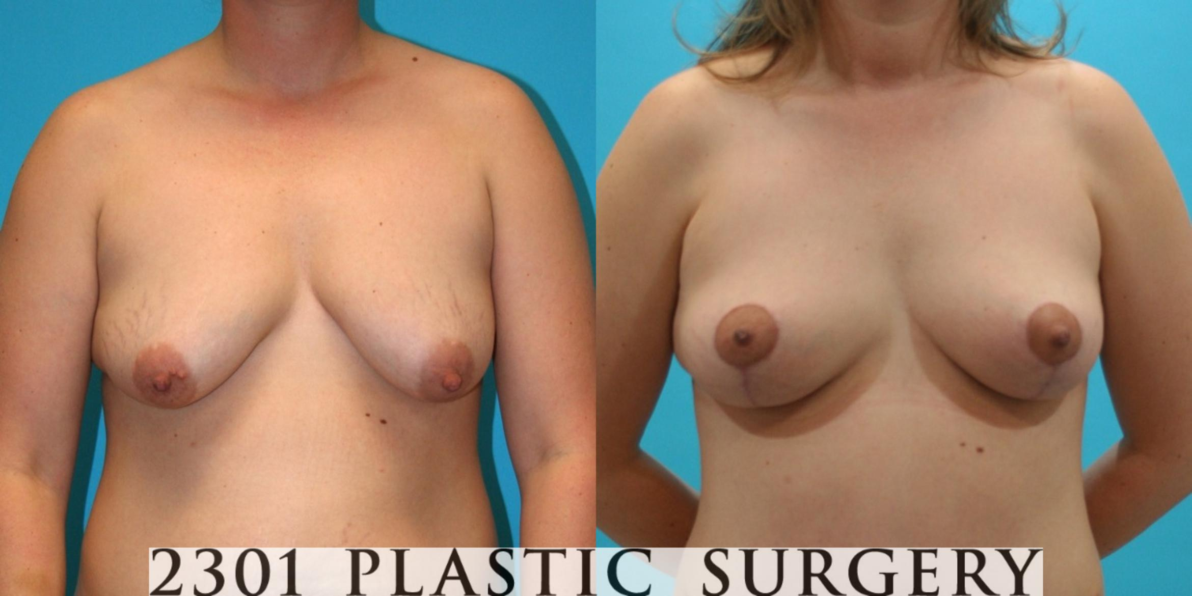 Breast Lift (Mastopexy) Case 26 Before & After View #1 | Southlake, Texas | Michael A. Bogdan, MD, FACS