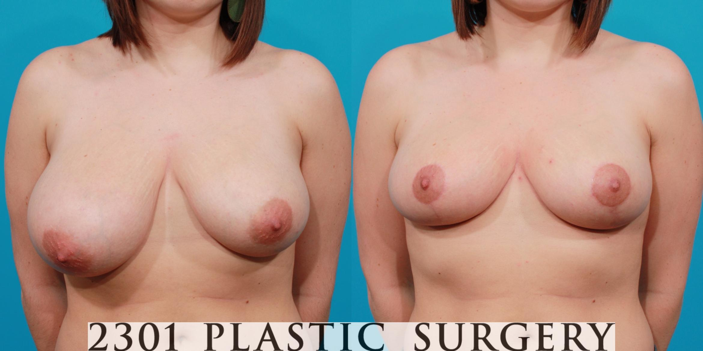 Breast Reduction Case 133 Before & After View #1 | Southlake, Texas | Michael A. Bogdan, MD, FACS