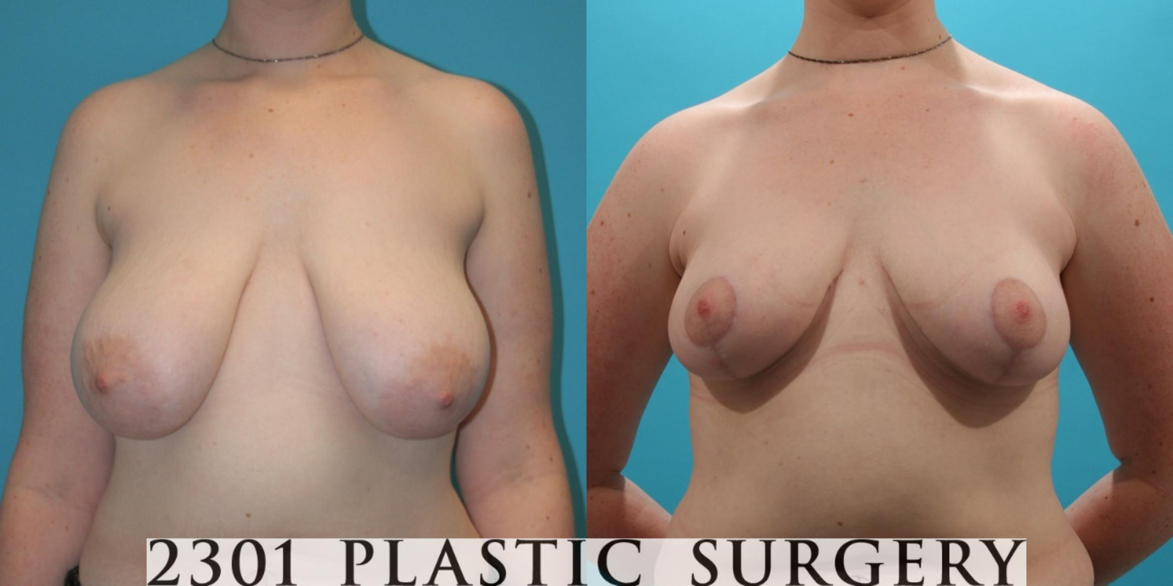 Breast Reduction Case 27 Before & After View #1 | Fort Worth & Frisco, Texas | Michael A. Bogdan, MD, FACS
