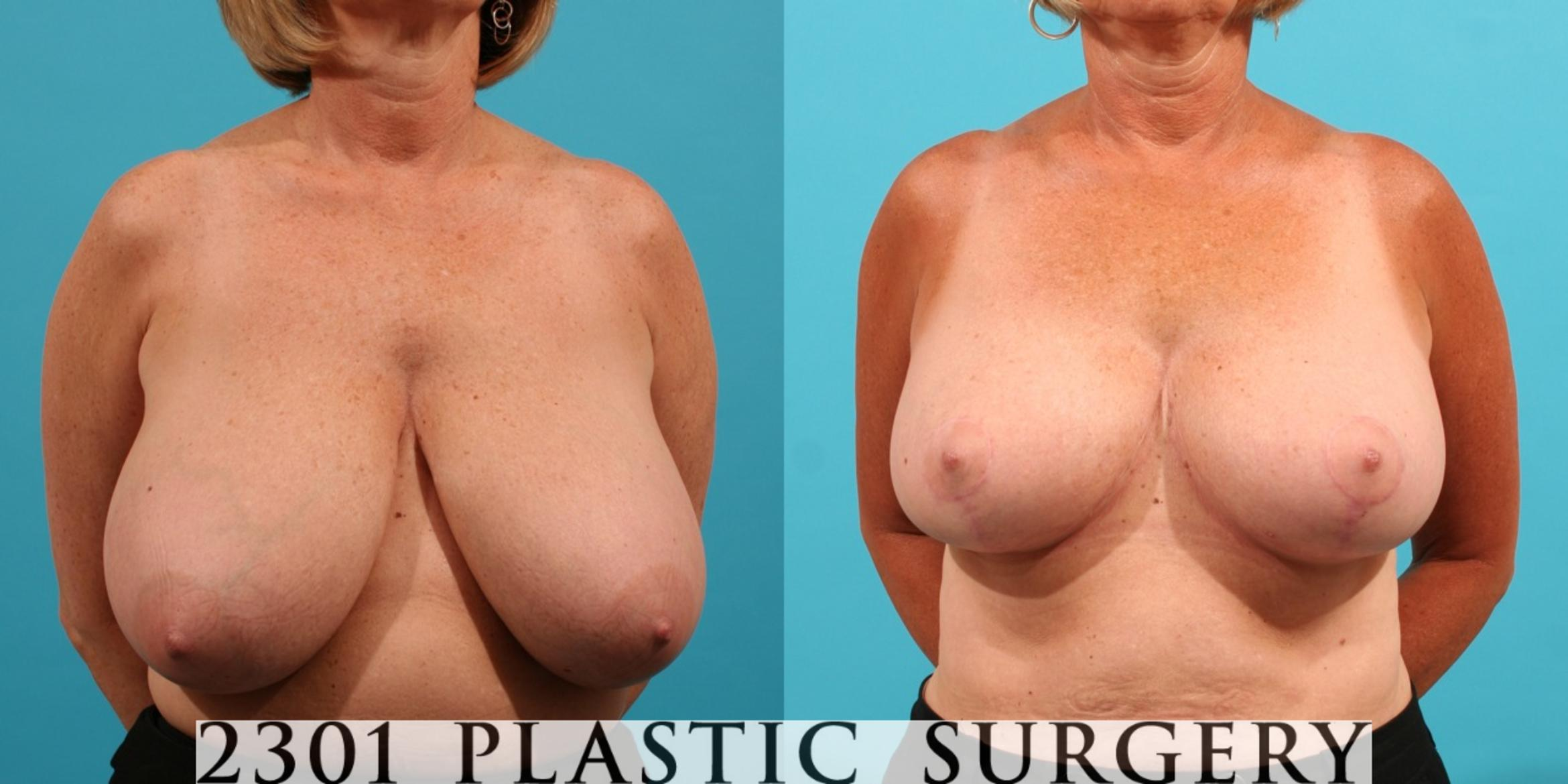 Breast Reduction Case 30 Before & After View #1 | Fort Worth & Frisco, Texas | Michael A. Bogdan, MD, FACS
