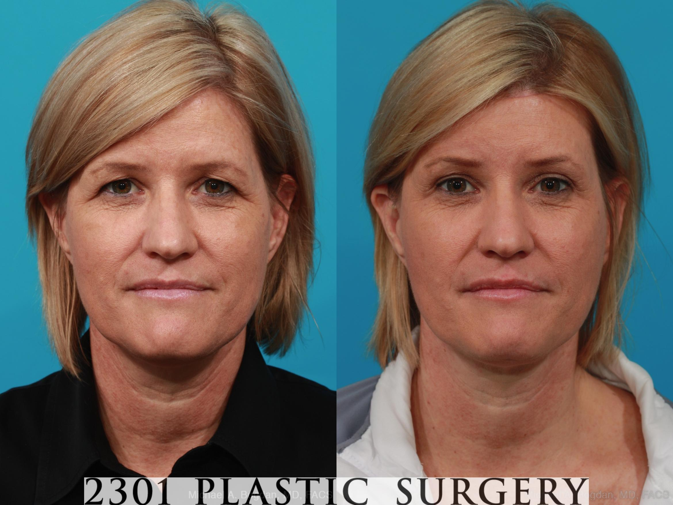 Brow Lift Case 299 Before & After View #1 | Southlake, Texas | Michael A. Bogdan, MD, FACS