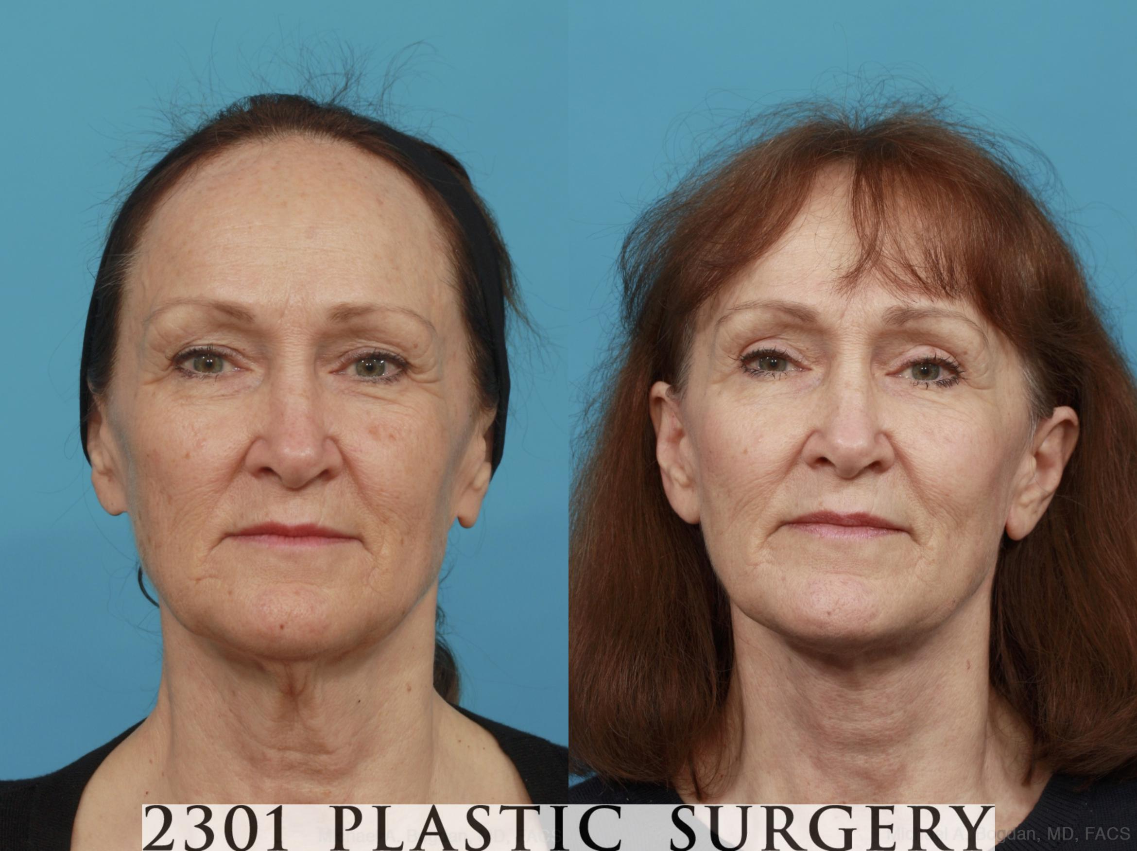 Face Lift Case 541 Before & After View #1 | Fort Worth & Frisco, Texas | Michael A. Bogdan, MD, FACS