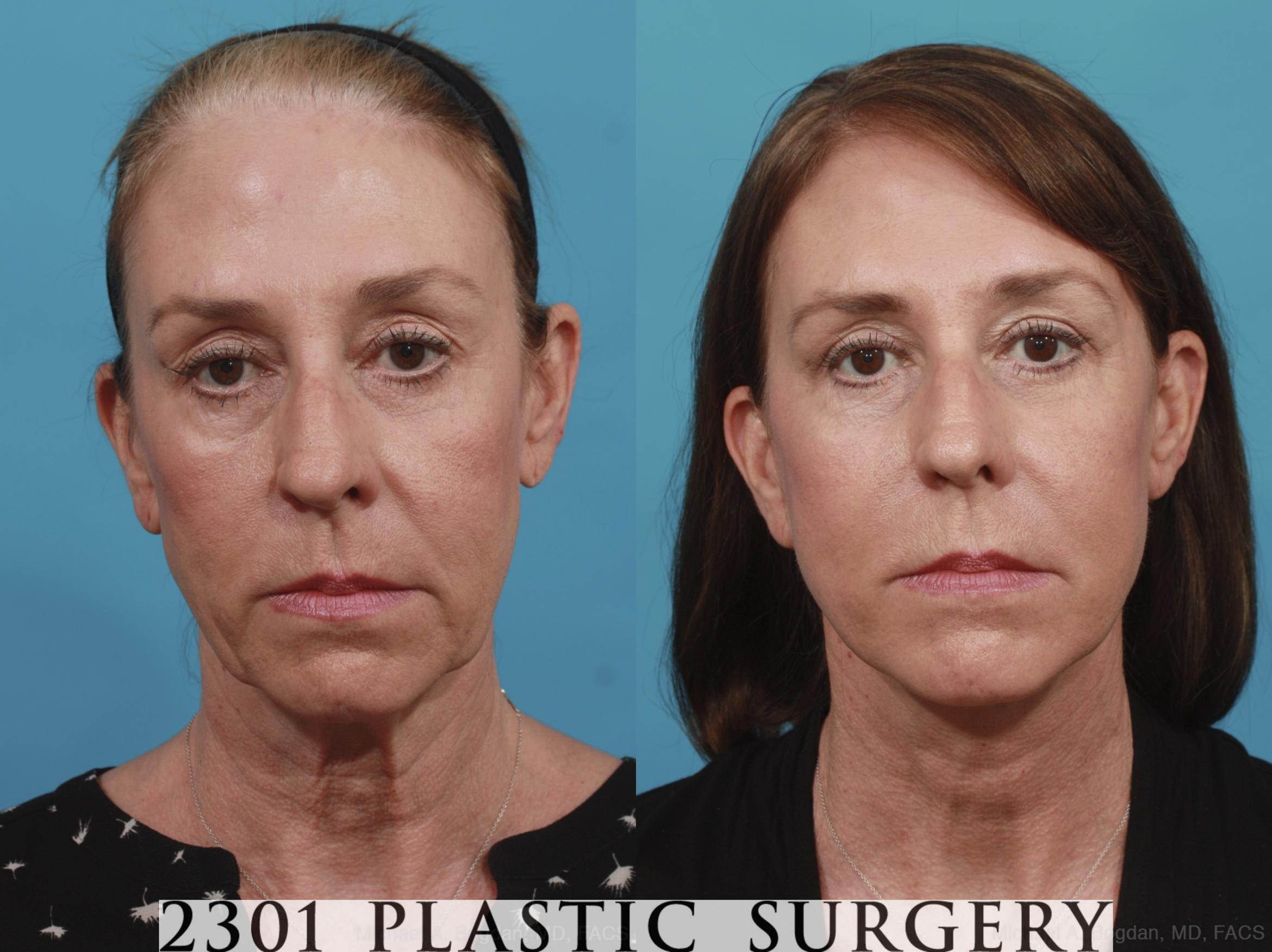 Face Lift Case 576 Before & After View #1 | Fort Worth & Frisco, Texas | Michael A. Bogdan, MD, FACS