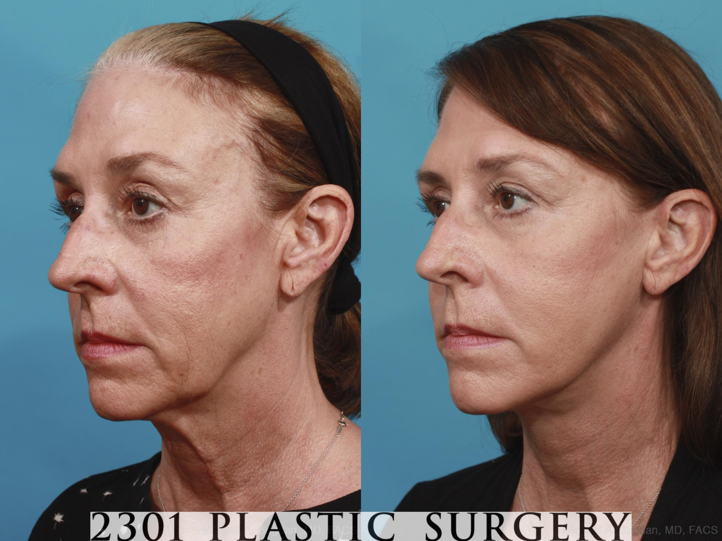 Face Lift Case 576 Before & After View #2 | Fort Worth & Frisco, Texas | Michael A. Bogdan, MD, FACS