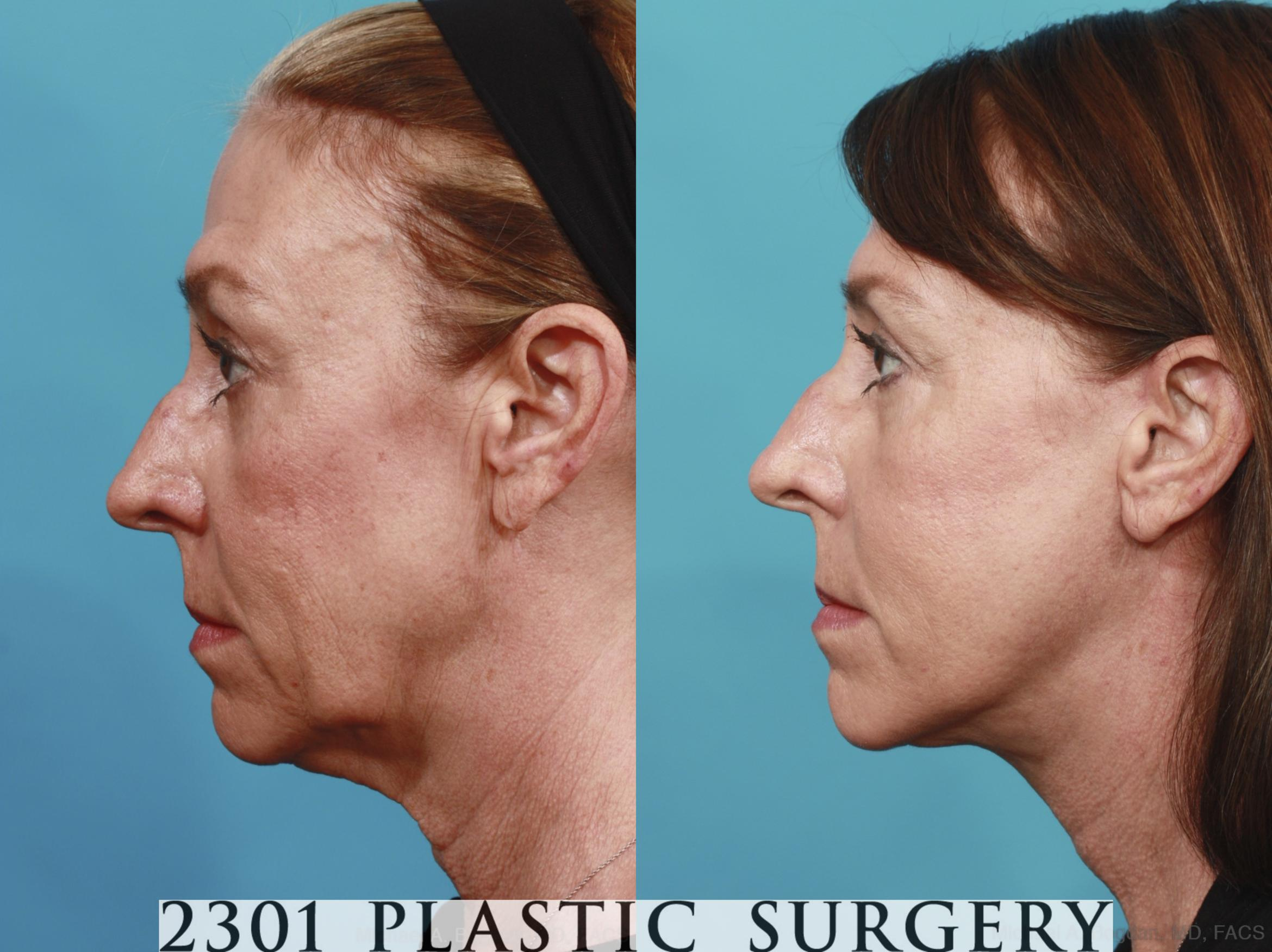Face Lift Case 576 Before & After View #3 | Fort Worth & Frisco, Texas | Michael A. Bogdan, MD, FACS