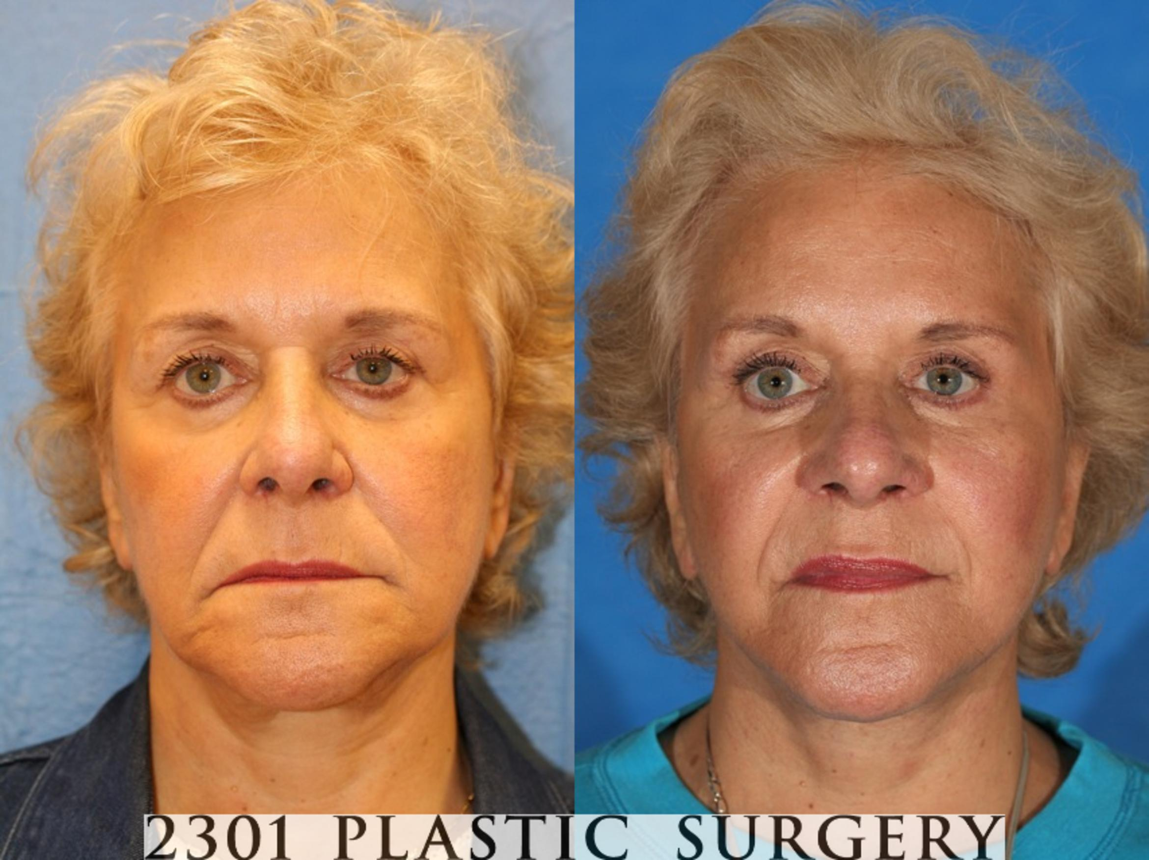 Face Lift Case 75 Before & After View #1 | Southlake, Texas | Michael A. Bogdan, MD, FACS