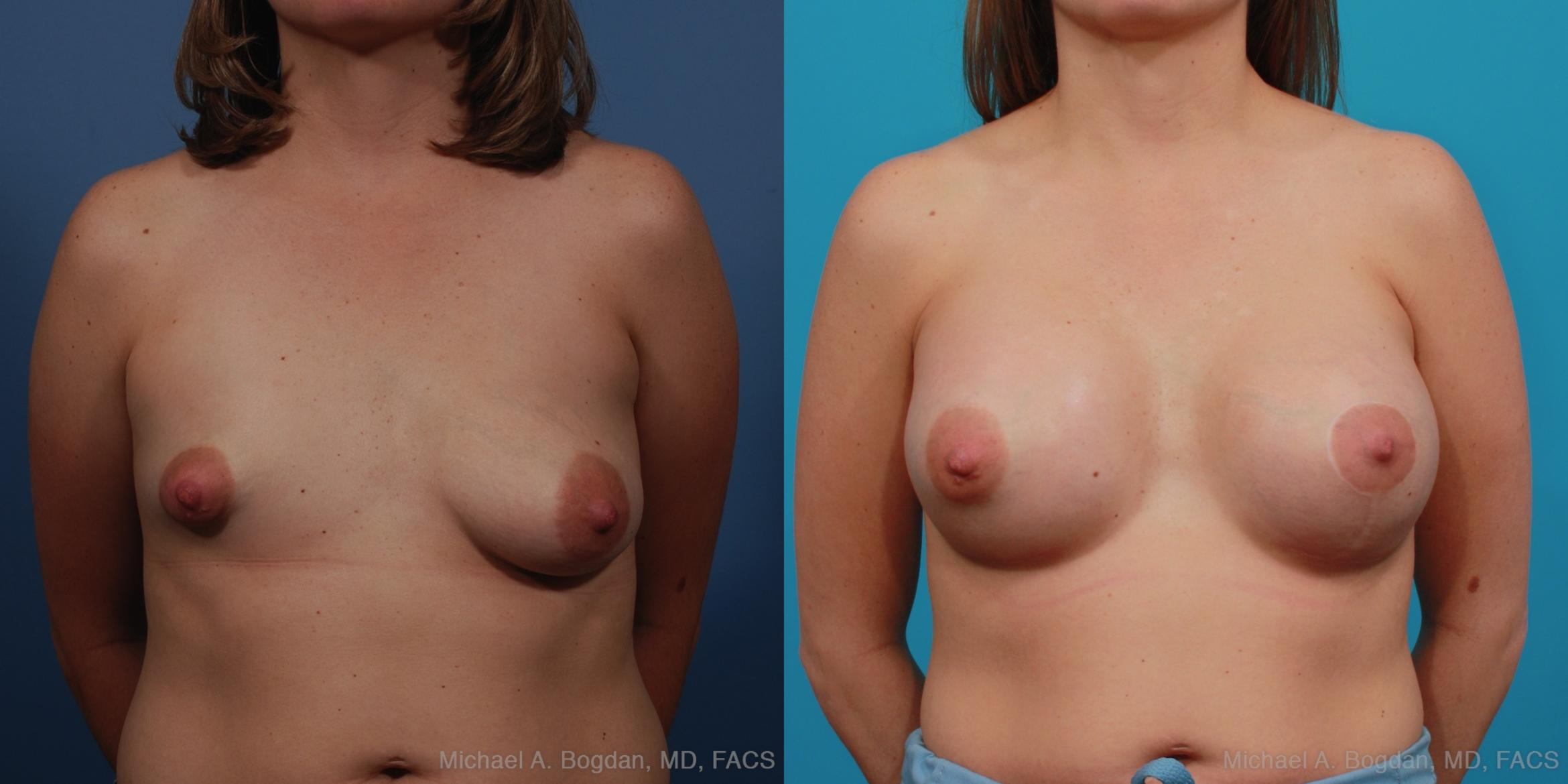 Mastopexy & Augmentation Case 340 Before & After View #1 | Fort Worth & Frisco, Texas | Michael A. Bogdan, MD, FACS
