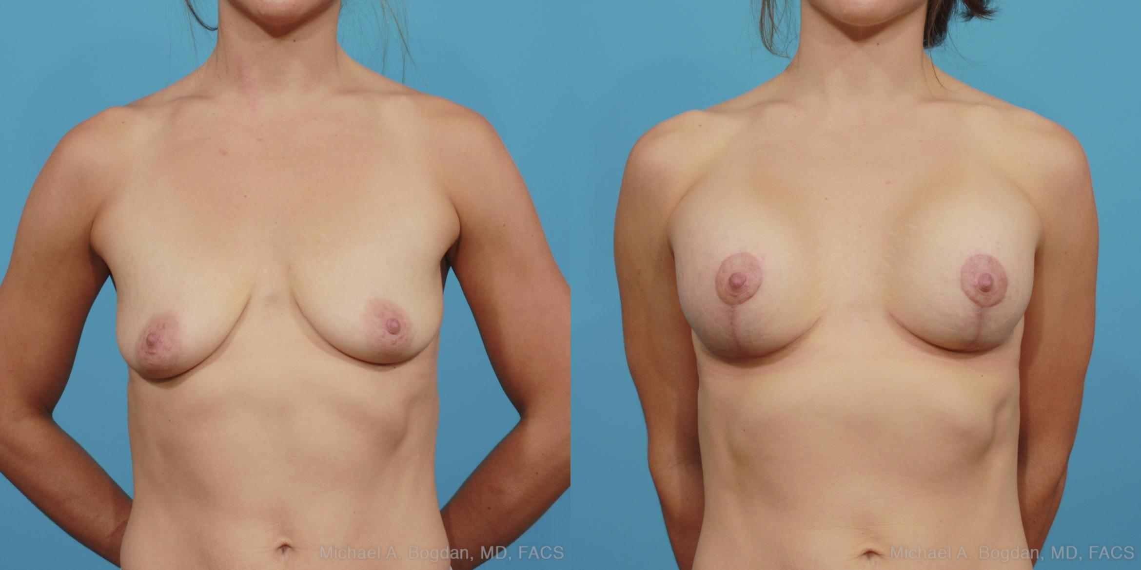 Mastopexy & Augmentation Case 375 Before & After View #1 | Southlake, Texas | Michael A. Bogdan, MD, FACS