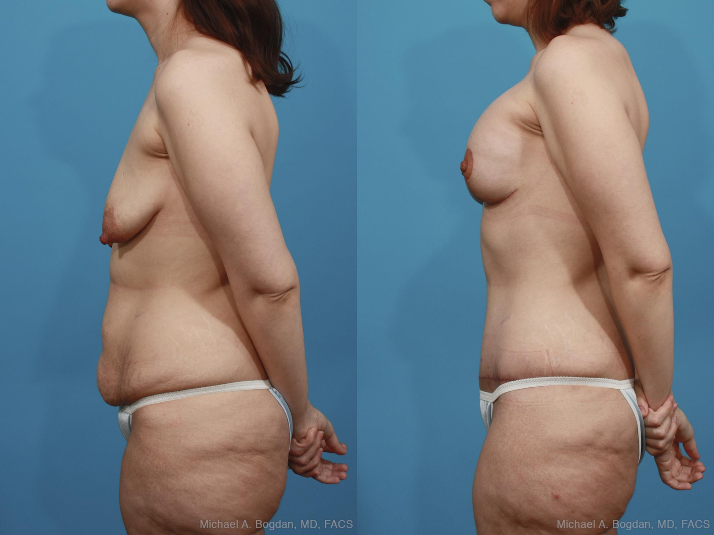 Mastopexy & Augmentation Case 377 Before & After View #2 | Southlake, Texas | Michael A. Bogdan, MD, FACS