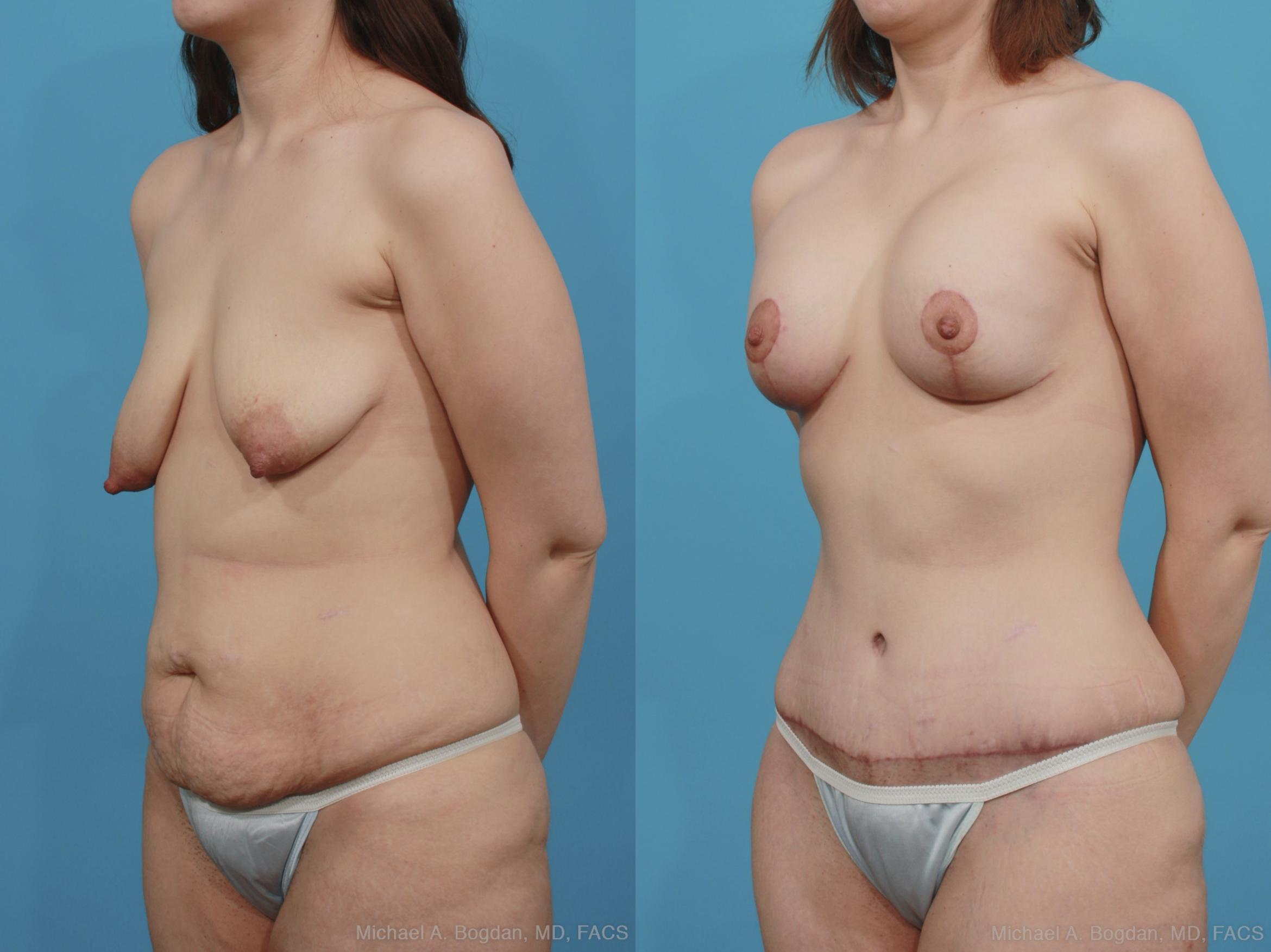 Mastopexy & Augmentation Case 377 Before & After View #3 | Southlake, Texas | Michael A. Bogdan, MD, FACS