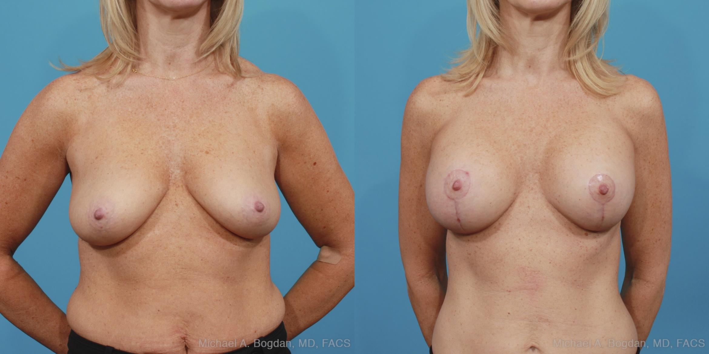 Mastopexy & Augmentation Case 389 Before & After View #1 | Fort Worth & Frisco, Texas | Michael A. Bogdan, MD, FACS