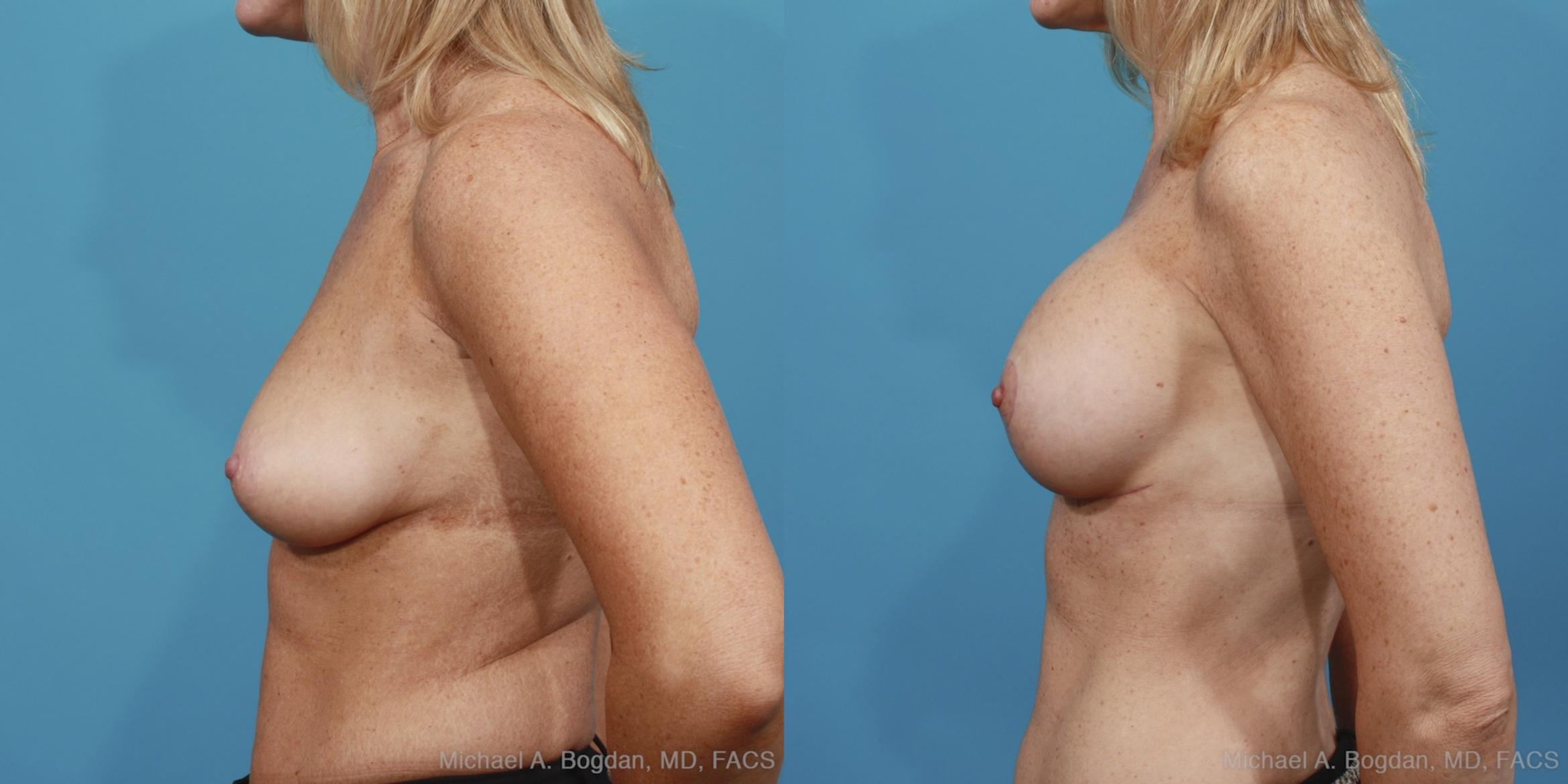 Mastopexy & Augmentation Case 389 Before & After View #2 | Fort Worth & Frisco, Texas | Michael A. Bogdan, MD, FACS