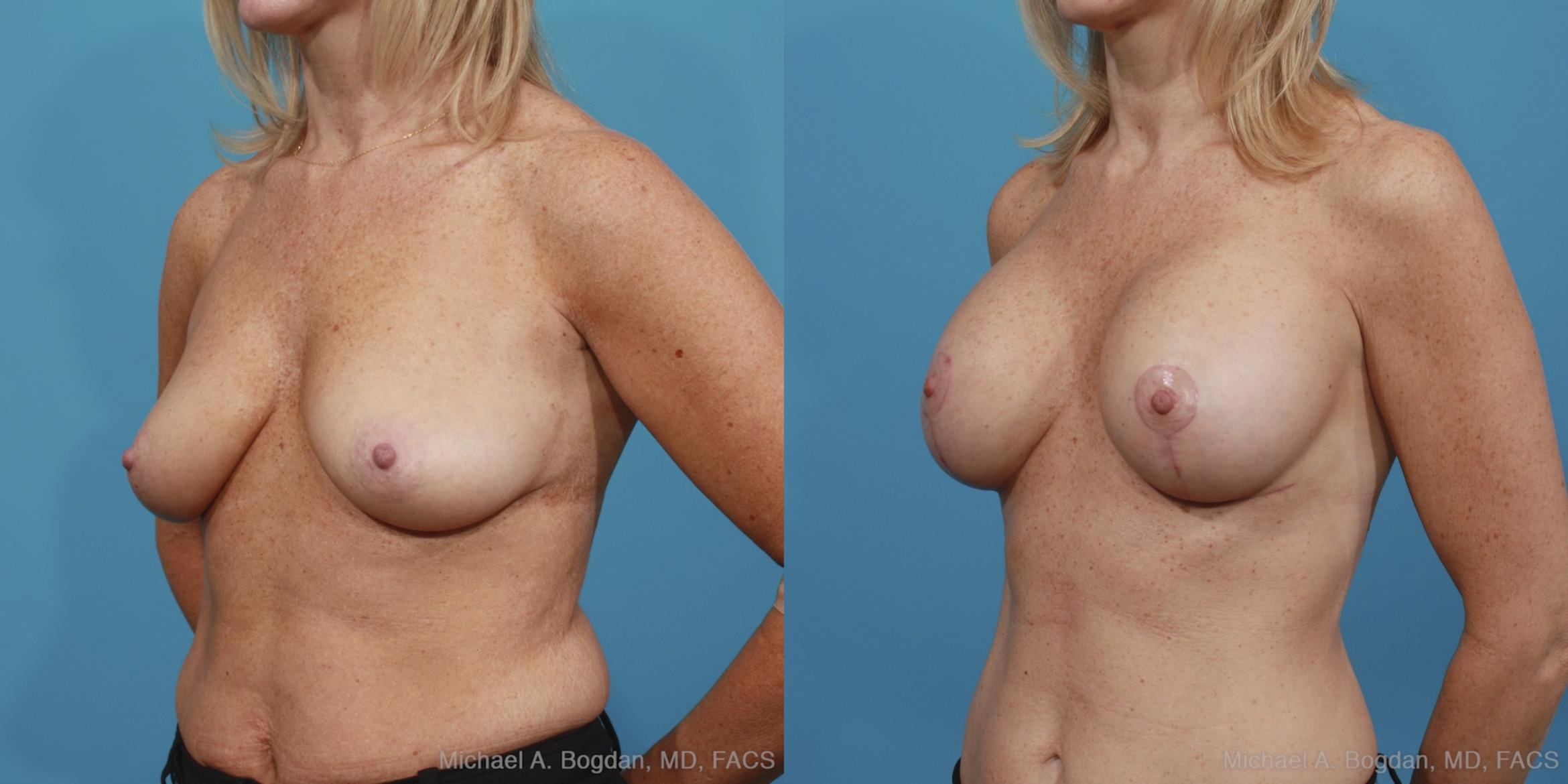 Mastopexy & Augmentation Case 389 Before & After View #3 | Fort Worth & Frisco, Texas | Michael A. Bogdan, MD, FACS