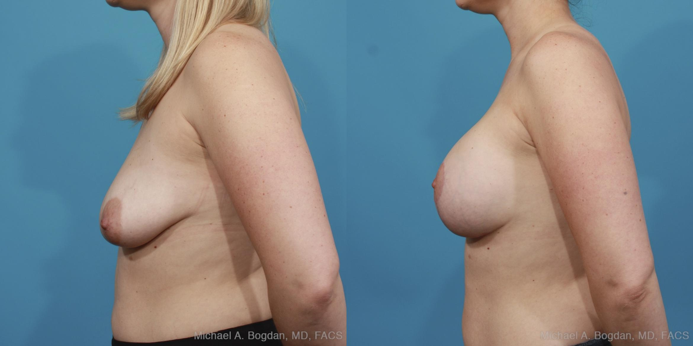 Mastopexy & Augmentation Case 404 Before & After View #2 | Fort Worth & Frisco, Texas | Michael A. Bogdan, MD, FACS