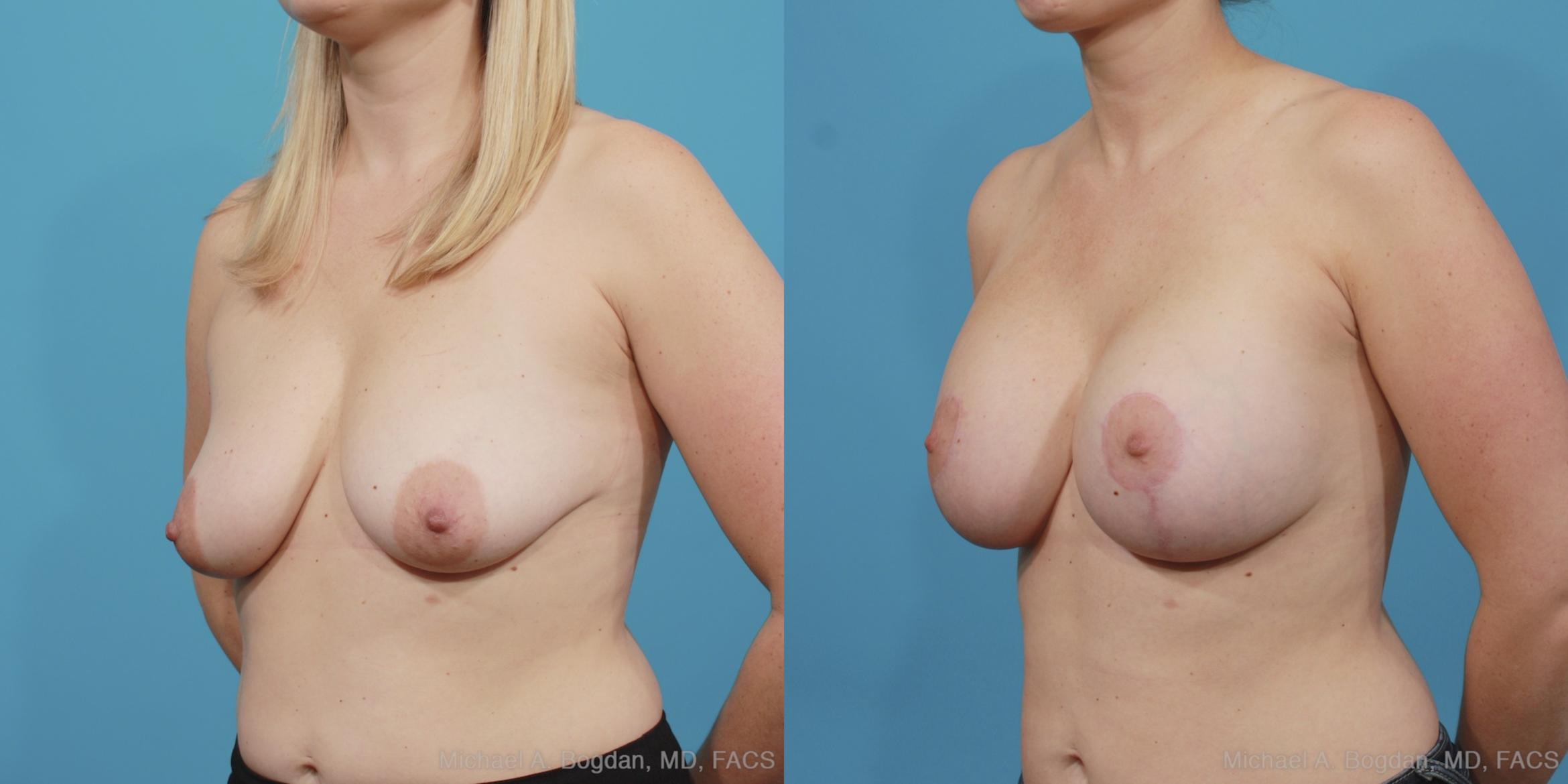 Mastopexy & Augmentation Case 404 Before & After View #3 | Fort Worth & Frisco, Texas | Michael A. Bogdan, MD, FACS