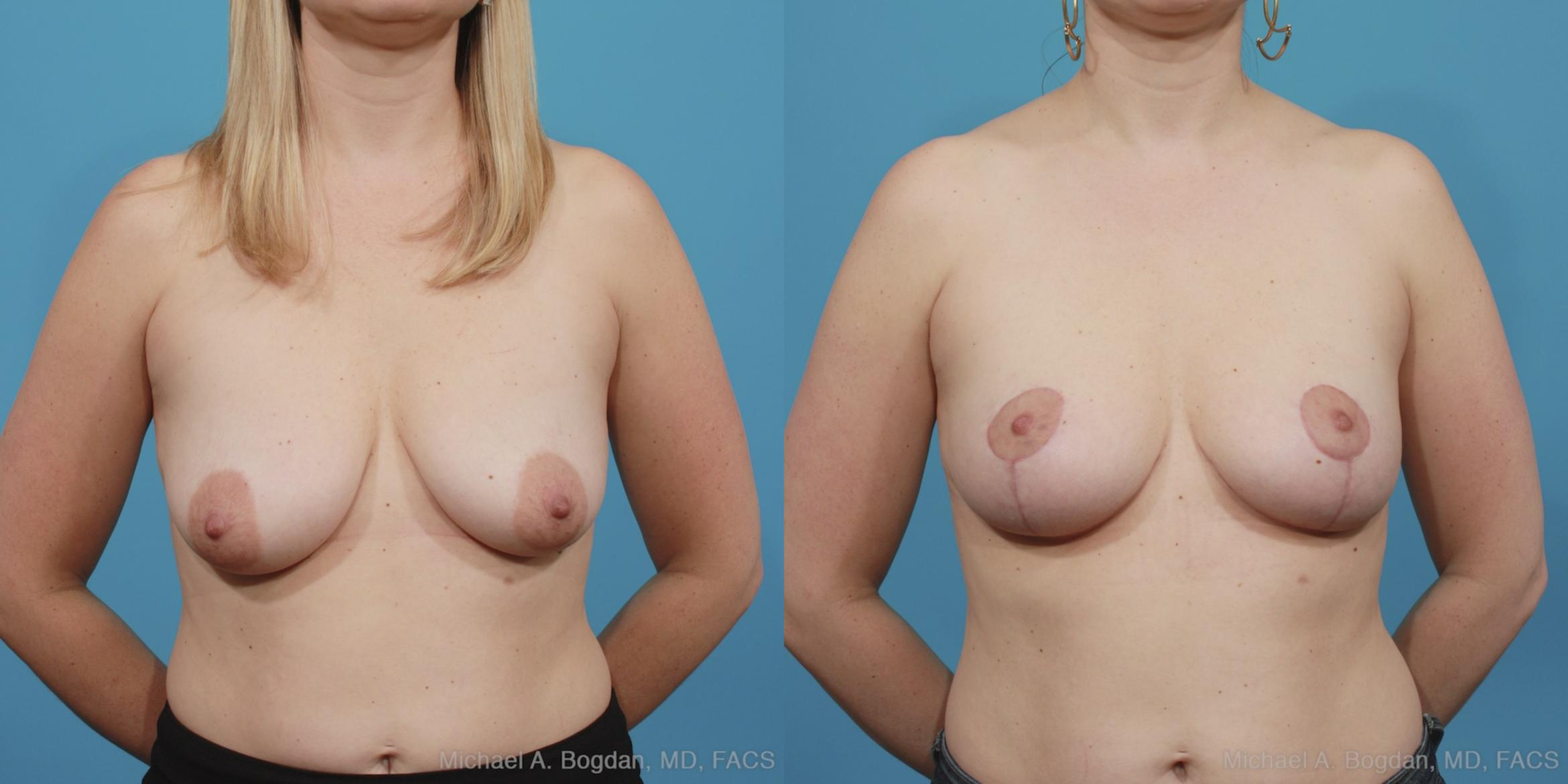 Mastopexy & Augmentation Case 404 Before & After View #4 | Fort Worth & Frisco, Texas | Michael A. Bogdan, MD, FACS