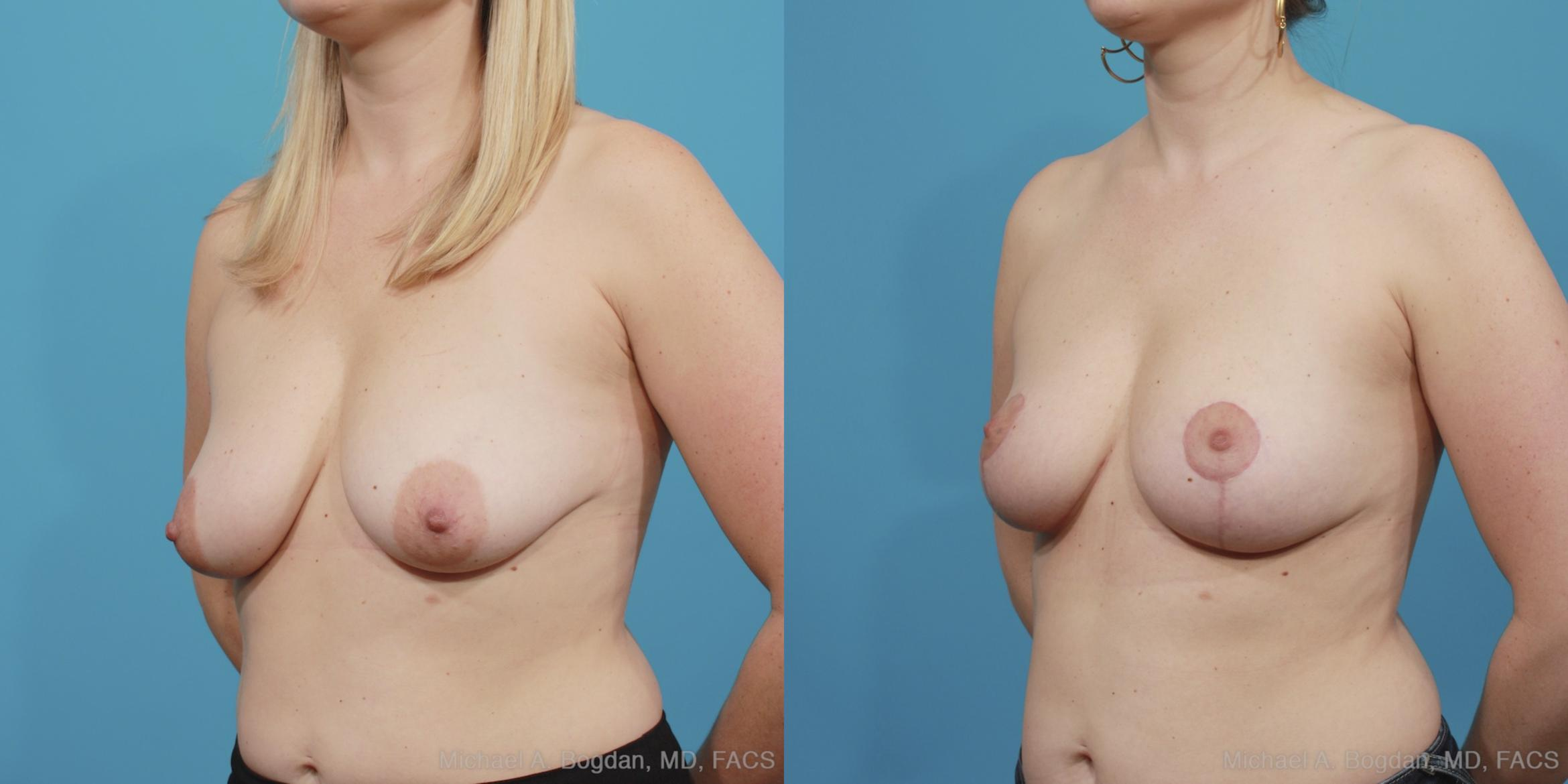 Mastopexy & Augmentation Case 404 Before & After View #5 | Fort Worth & Frisco, Texas | Michael A. Bogdan, MD, FACS