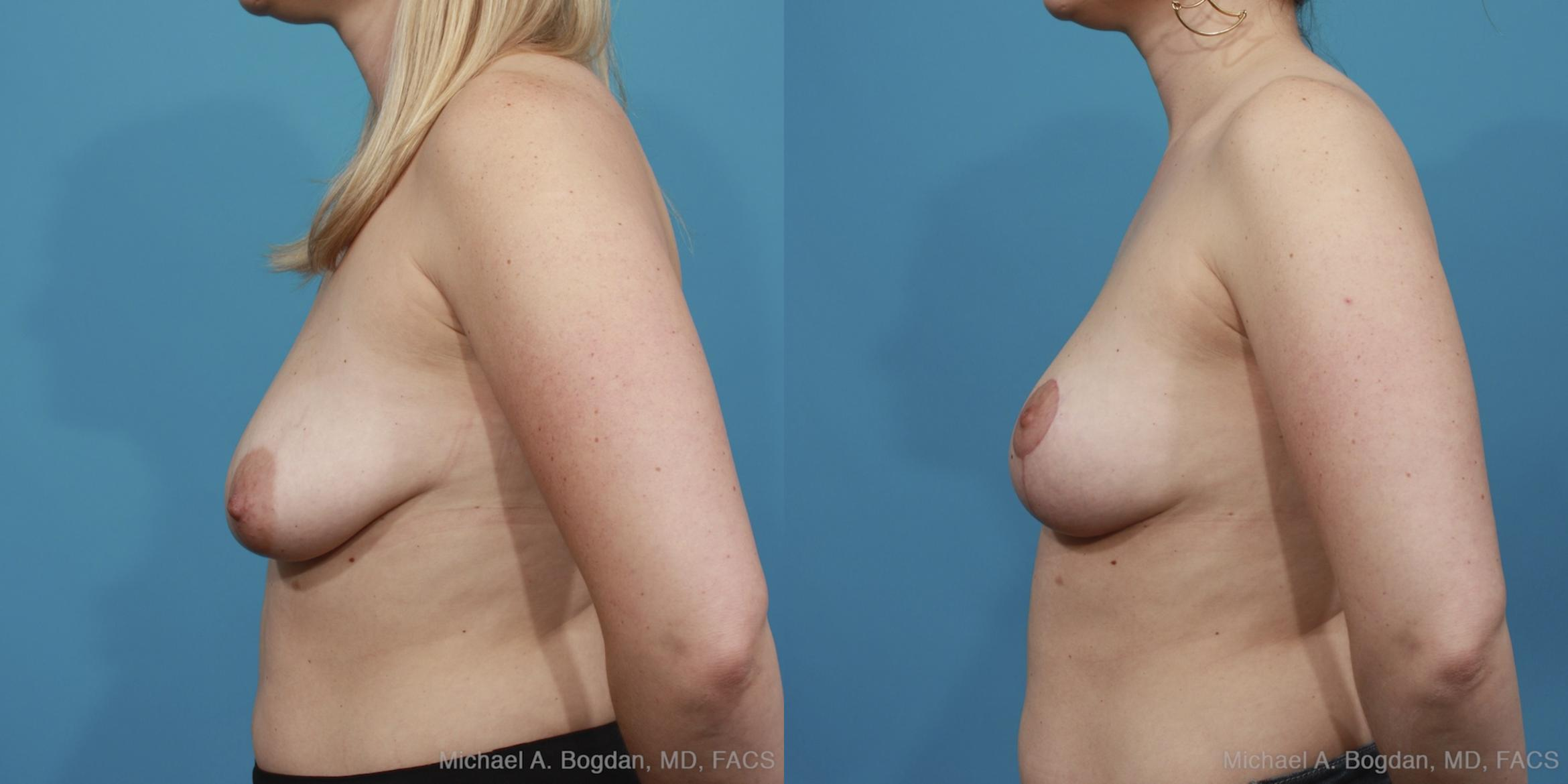 Mastopexy & Augmentation Case 404 Before & After View #6 | Fort Worth & Frisco, Texas | Michael A. Bogdan, MD, FACS
