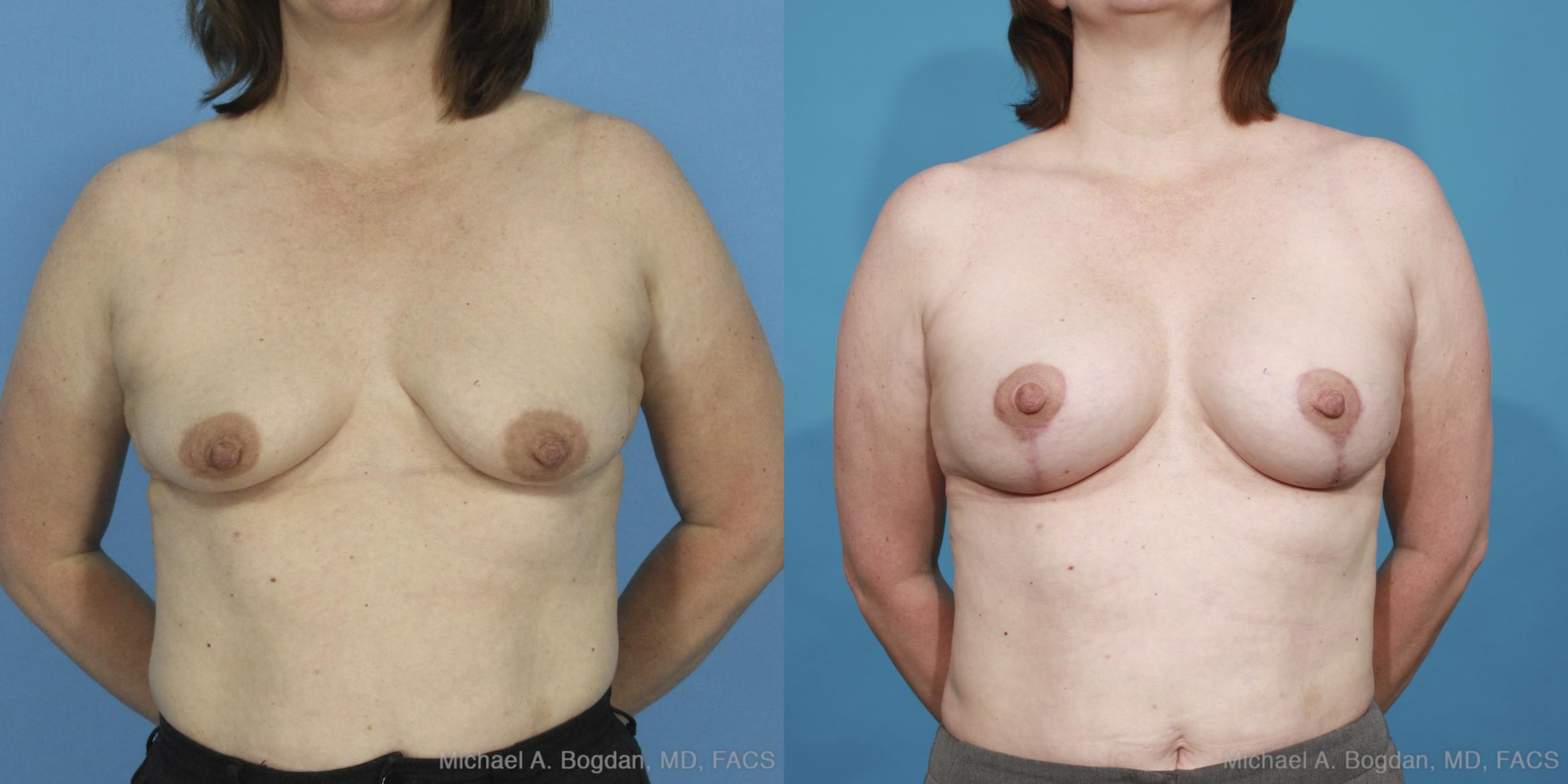 Mastopexy & Augmentation Case 424 Before & After View #1 | Southlake, Texas | Michael A. Bogdan, MD, FACS