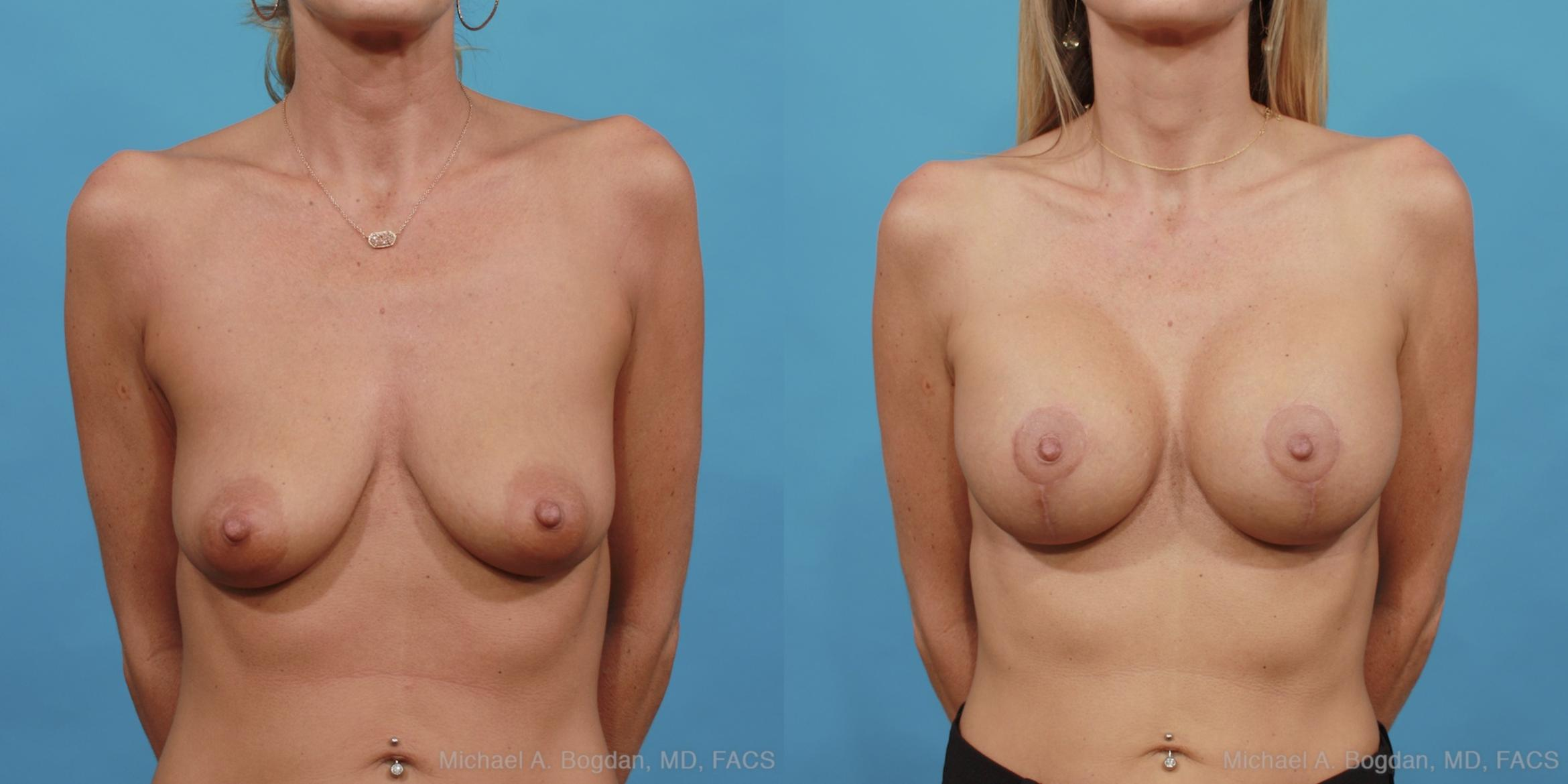 Mastopexy & Augmentation Case 442 Before & After View #1 | Fort Worth & Frisco, Texas | Michael A. Bogdan, MD, FACS