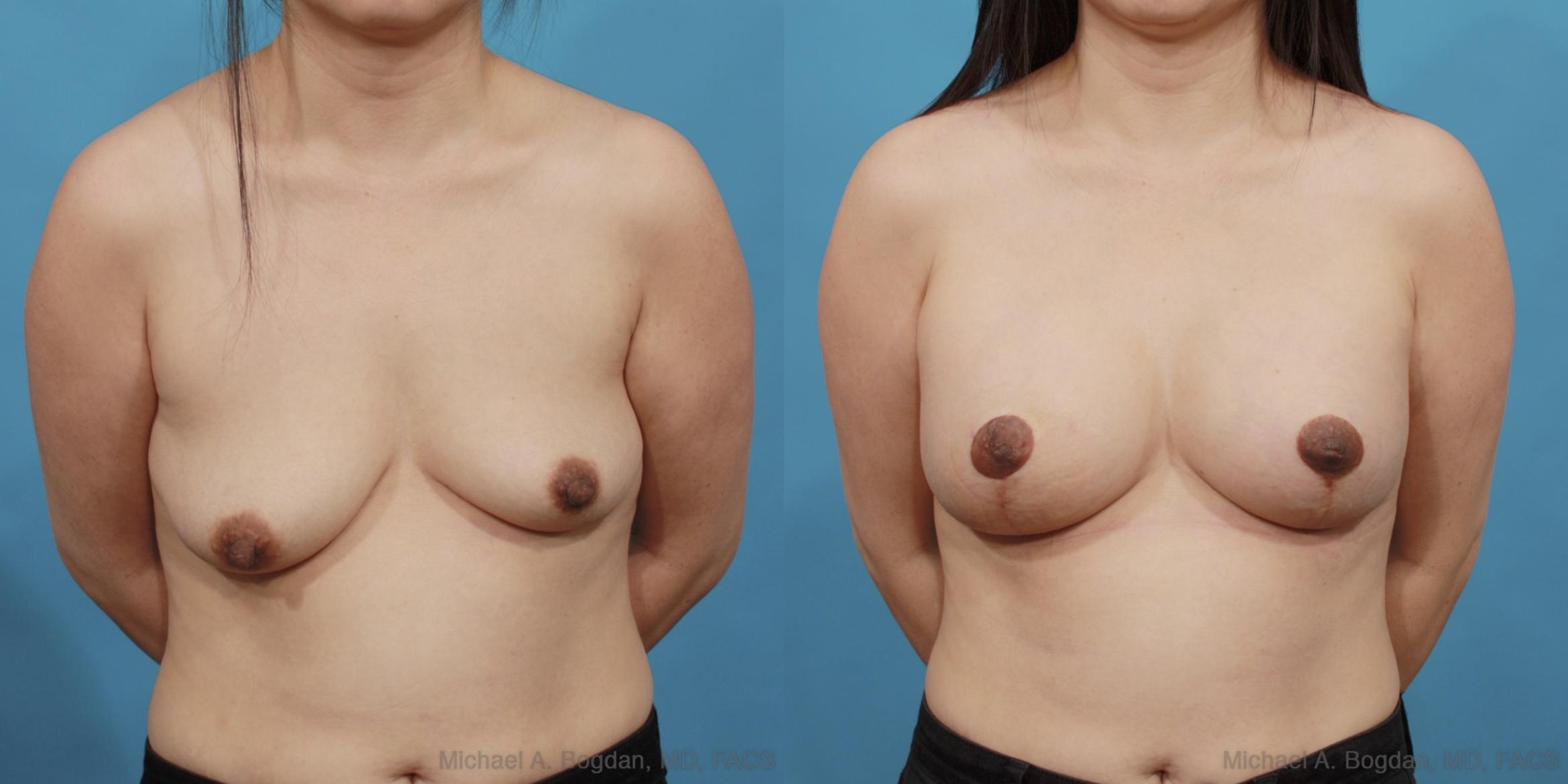 Mastopexy & Augmentation Case 537 Before & After View #1 | Fort Worth & Frisco, Texas | Michael A. Bogdan, MD, FACS