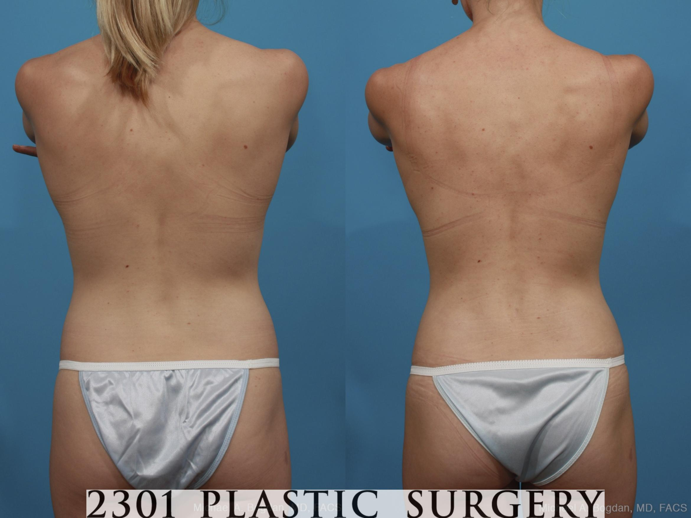 Mommy Makeover Case 386 Before & After View #5 | Southlake, Texas | Michael A. Bogdan, MD, FACS