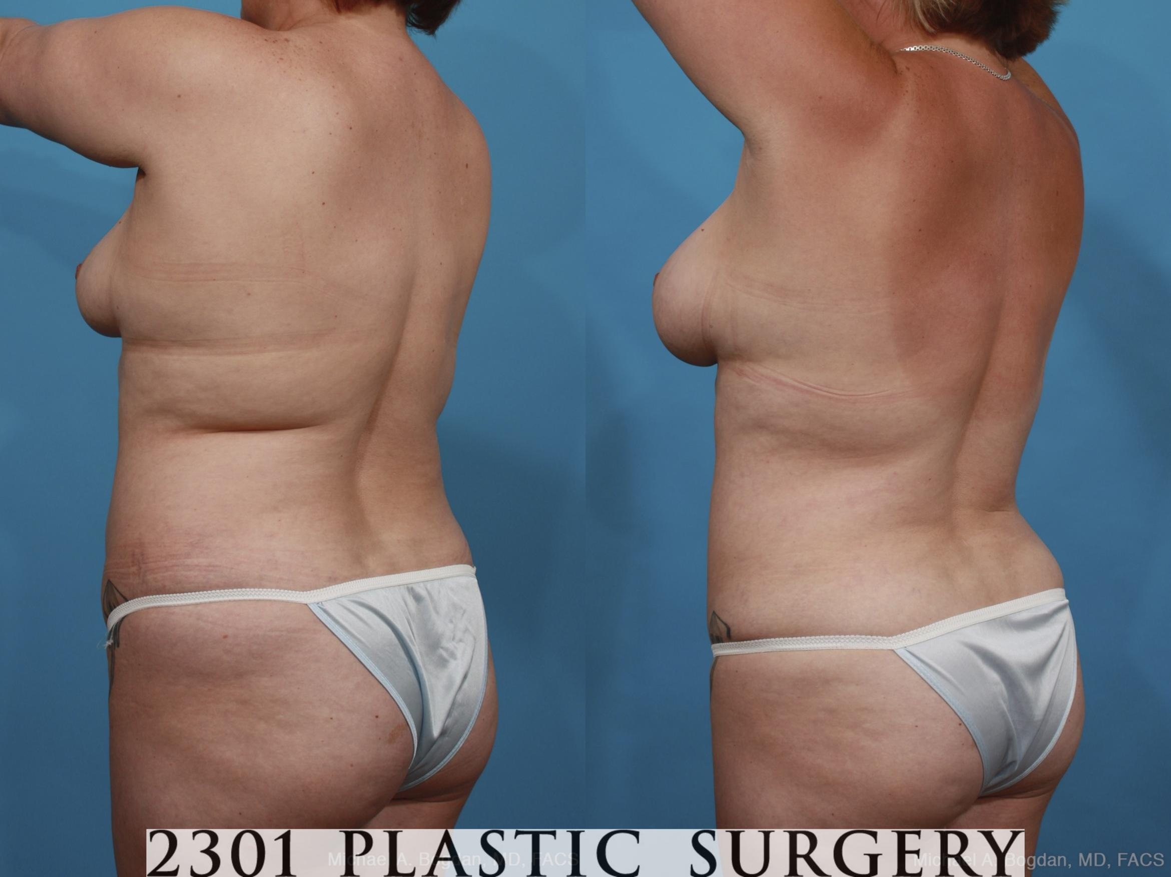 Mommy Makeover Case 399 Before & After View #4 | Southlake, Texas | Michael A. Bogdan, MD, FACS