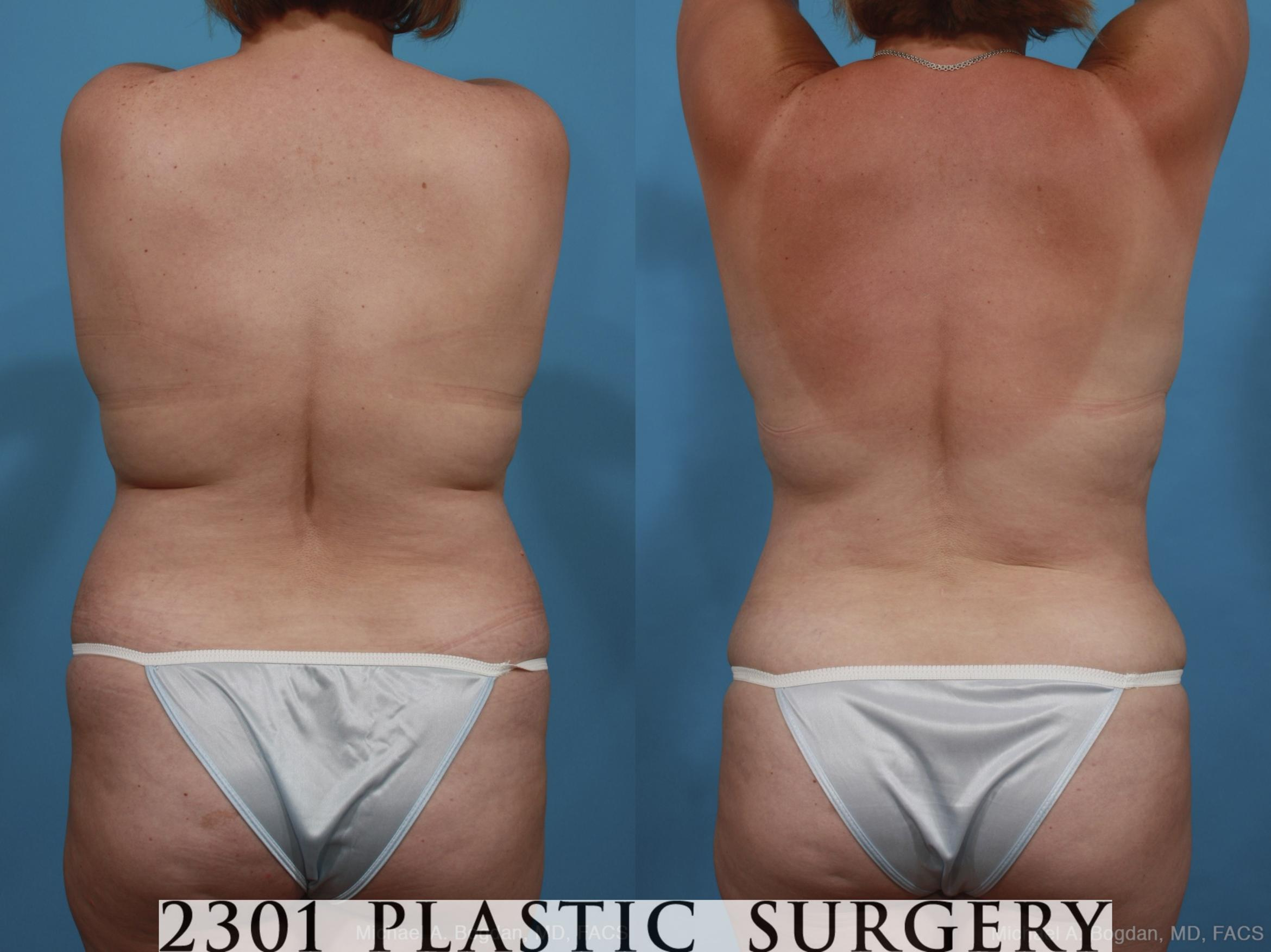 Mommy Makeover Case 399 Before & After View #5 | Southlake, Texas | Michael A. Bogdan, MD, FACS