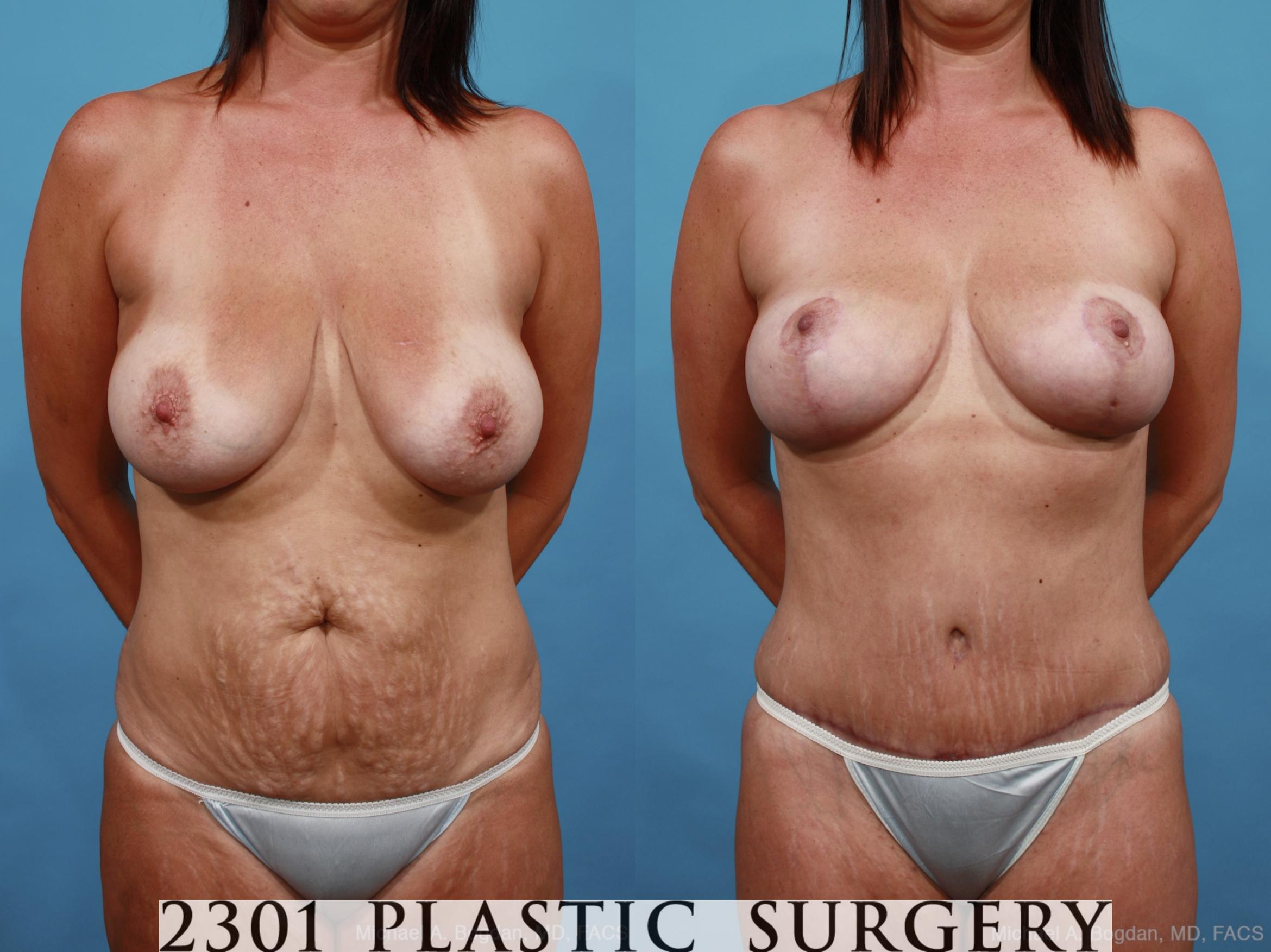 Mommy Makeover Case 452 Before & After View #1 | Southlake, Texas | Michael A. Bogdan, MD, FACS