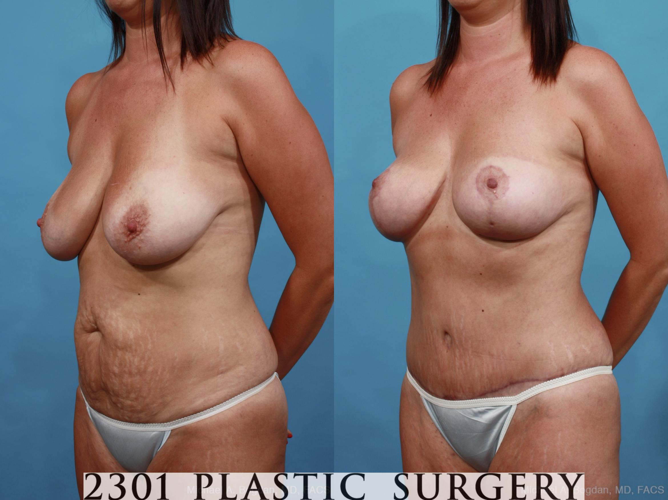 Mommy Makeover Case 452 Before & After View #2 | Southlake, Texas | Michael A. Bogdan, MD, FACS