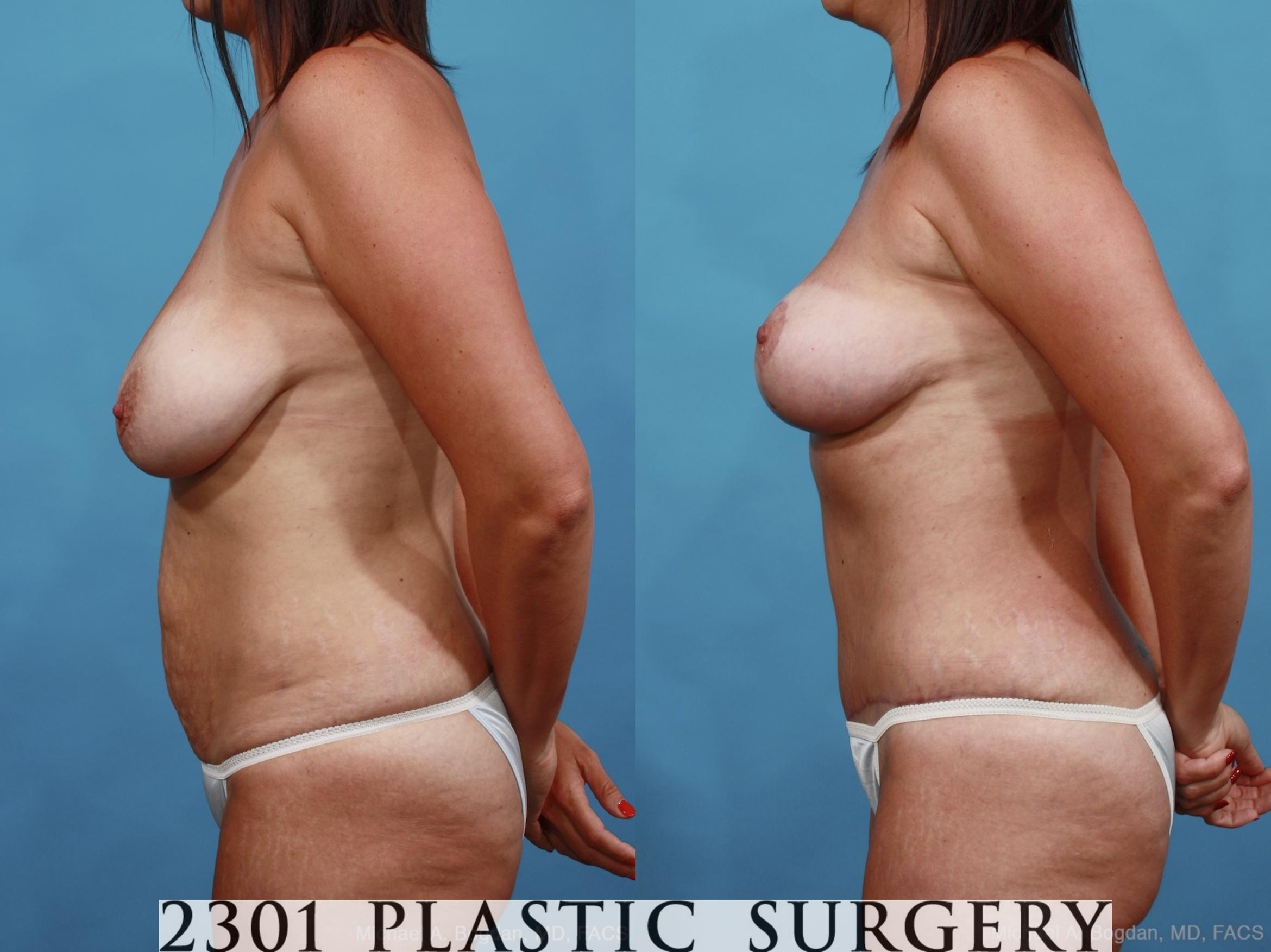 Mommy Makeover Case 452 Before & After View #3 | Southlake, Texas | Michael A. Bogdan, MD, FACS