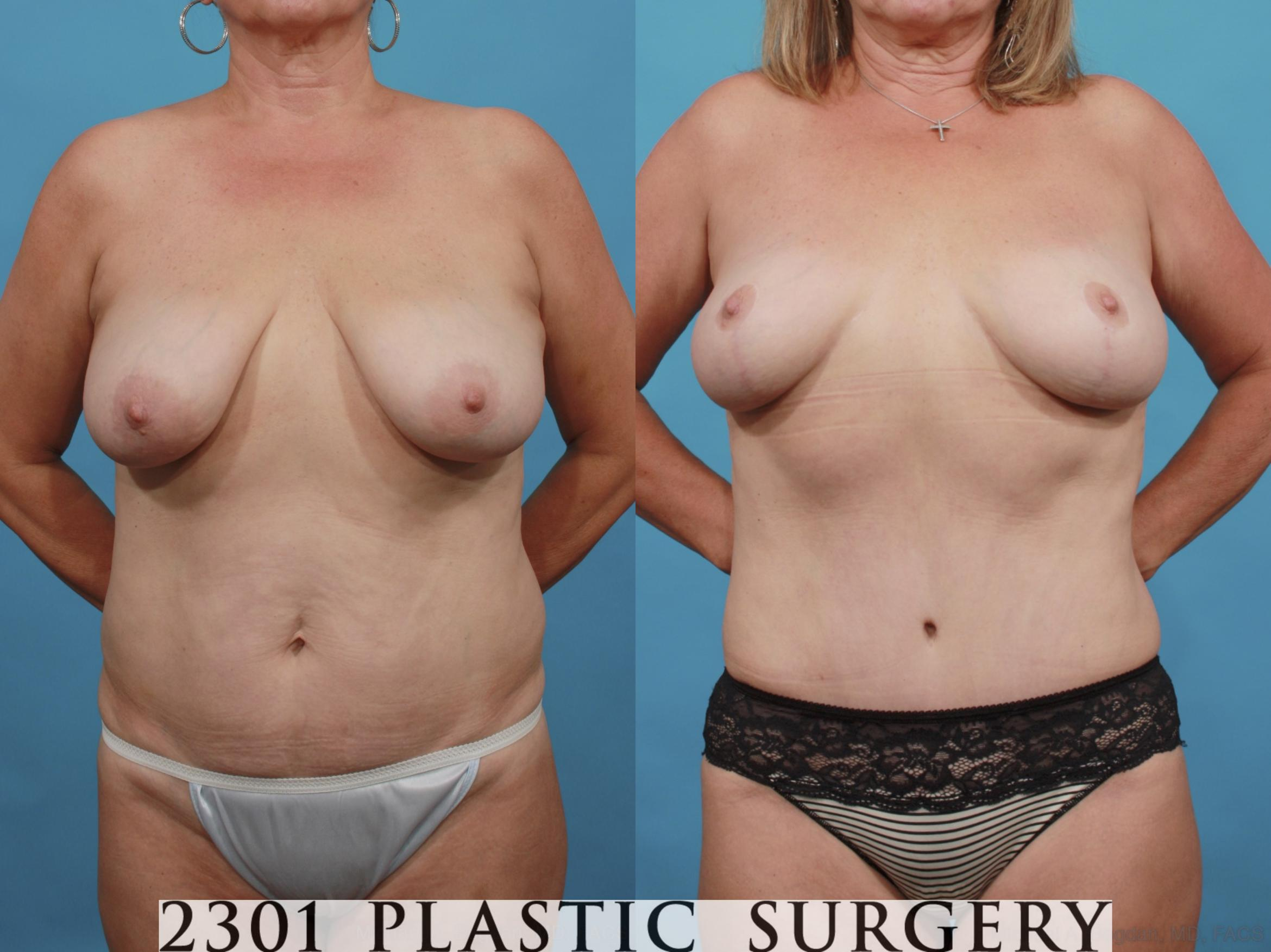 Mommy Makeover Case 552 Before & After View #1 | Southlake, Texas | Michael A. Bogdan, MD, FACS