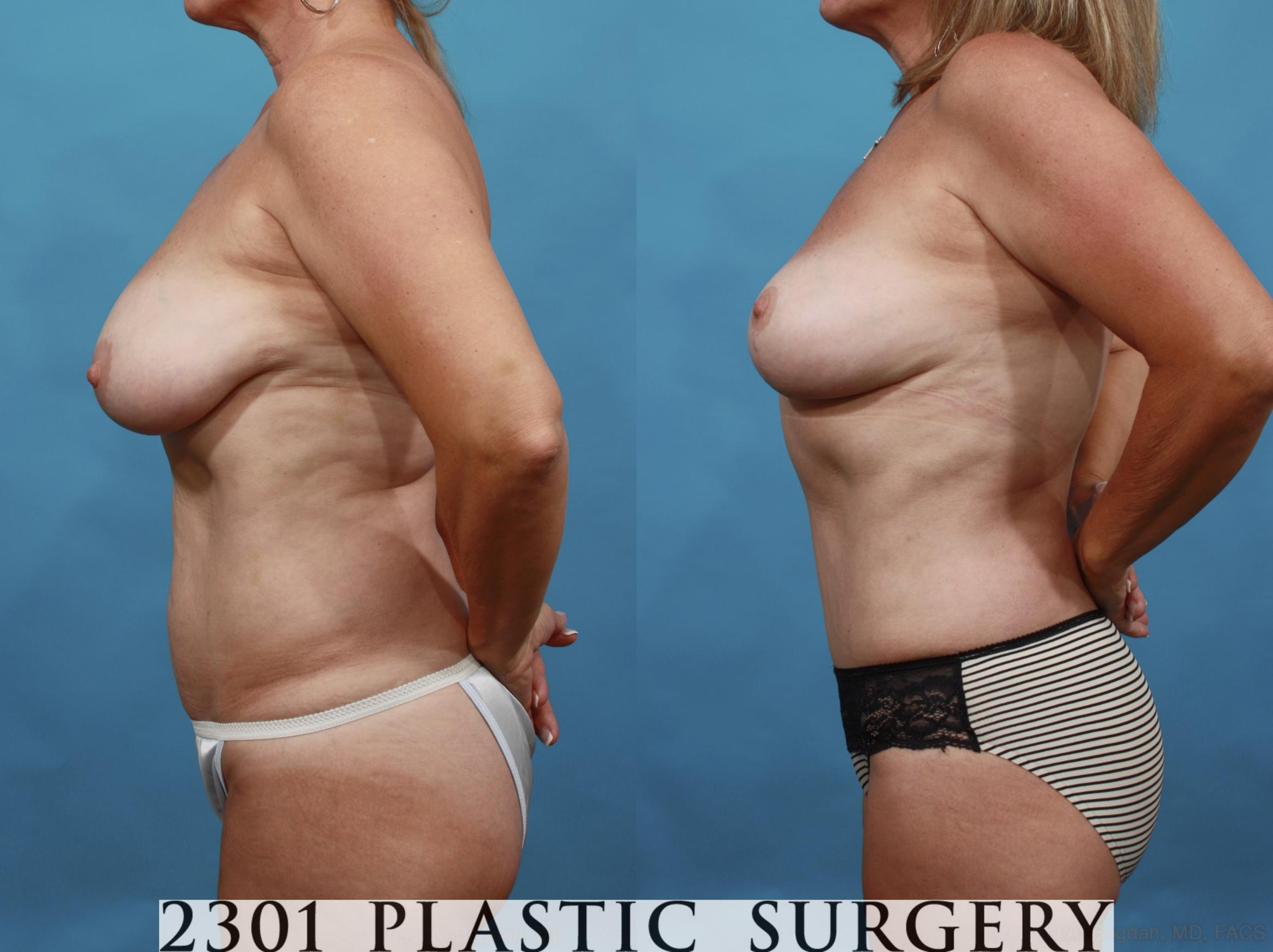 Mommy Makeover Case 552 Before & After View #3 | Southlake, Texas | Michael A. Bogdan, MD, FACS
