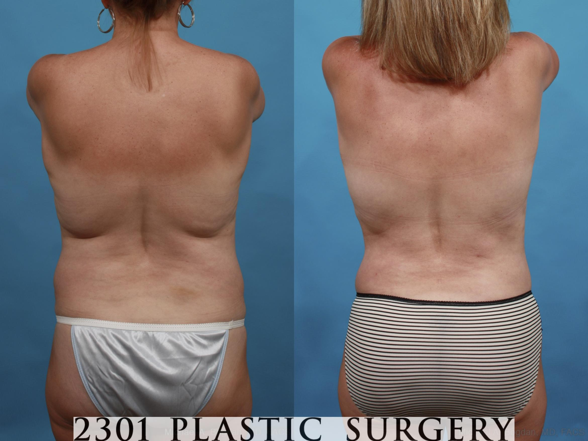 Mommy Makeover Case 552 Before & After View #6 | Southlake, Texas | Michael A. Bogdan, MD, FACS