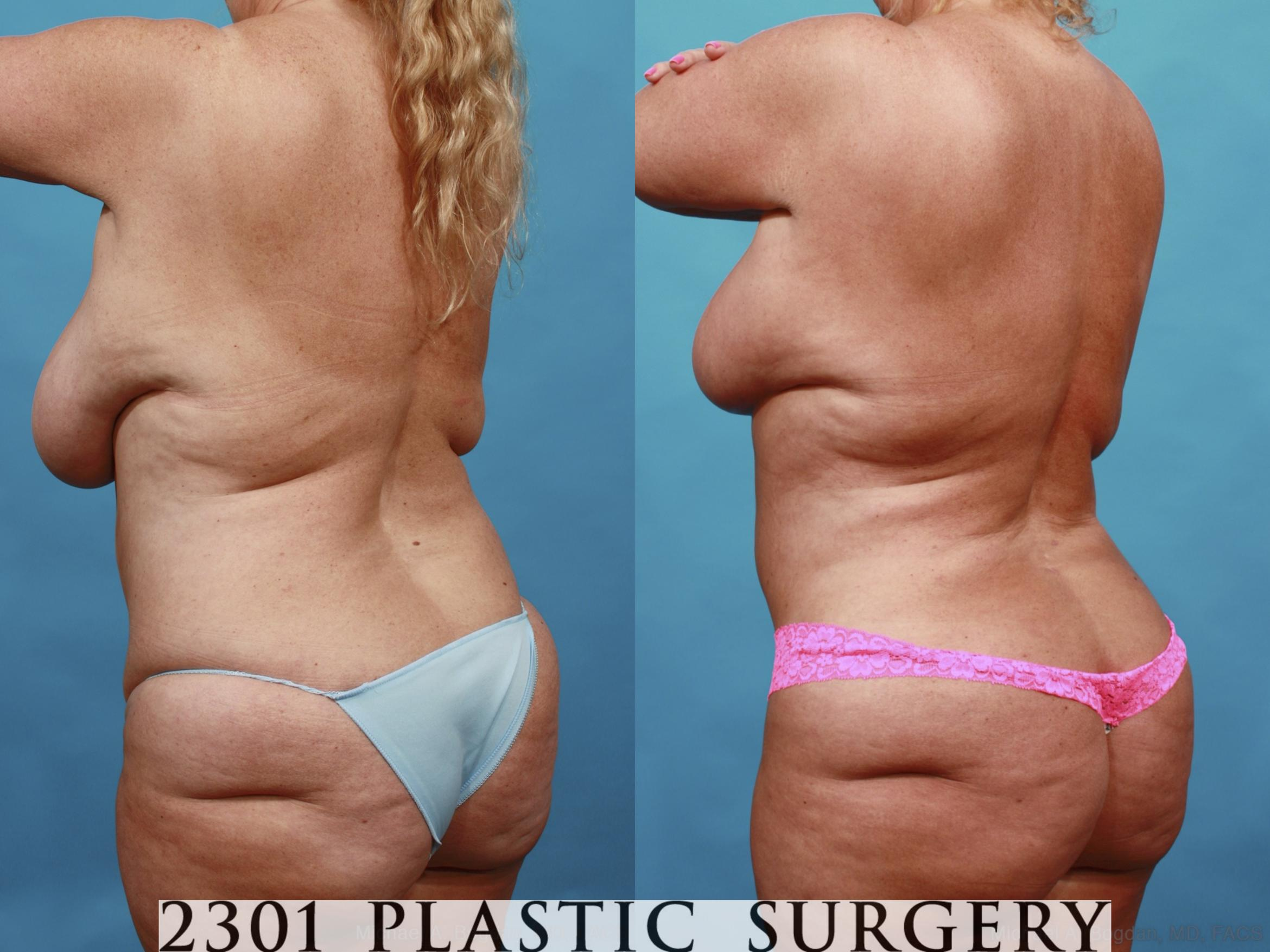 Mommy Makeover Case 561 Before & After View #4 | Southlake, Texas | Michael A. Bogdan, MD, FACS