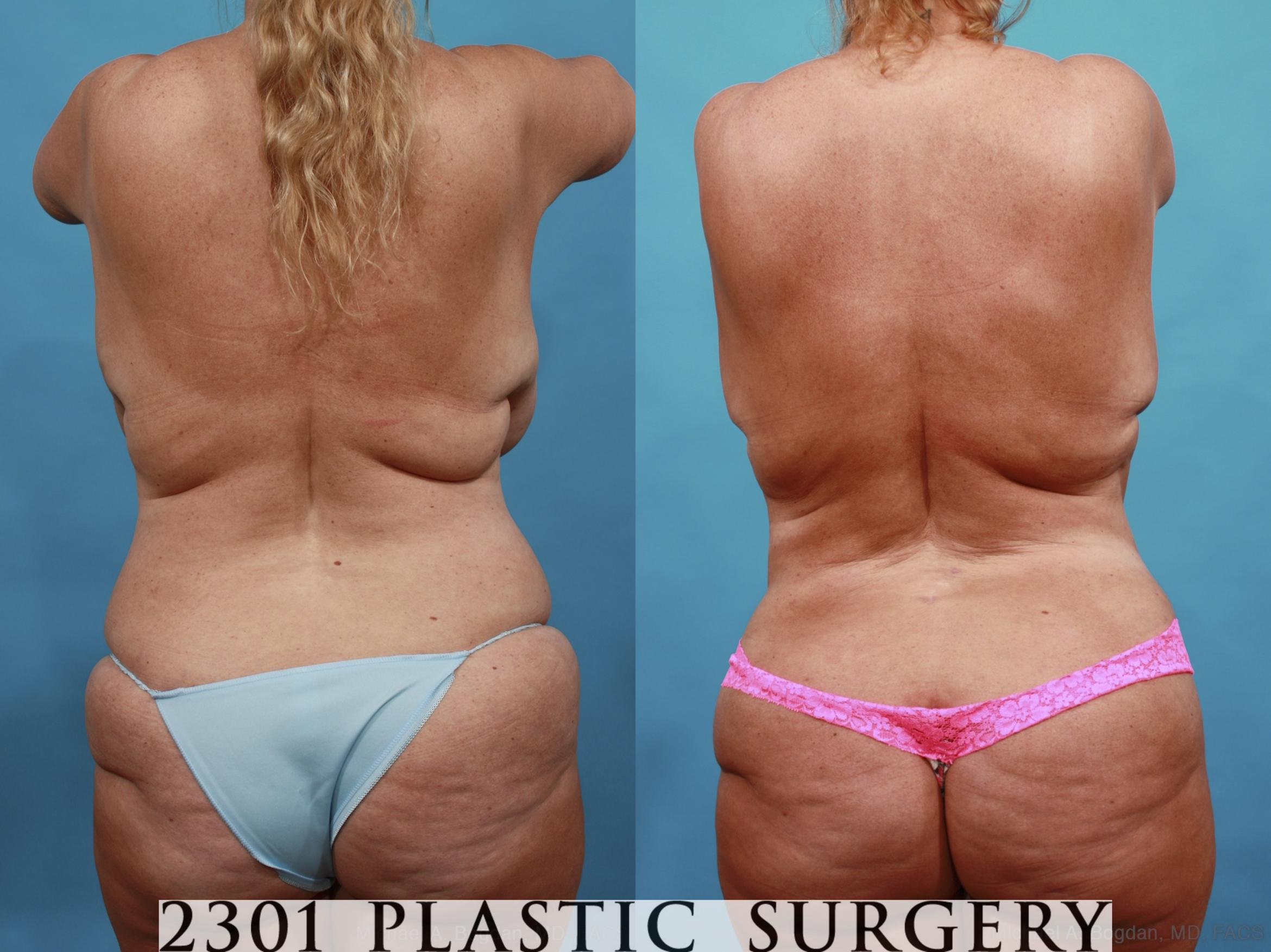 Mommy Makeover Case 561 Before & After View #5 | Southlake, Texas | Michael A. Bogdan, MD, FACS