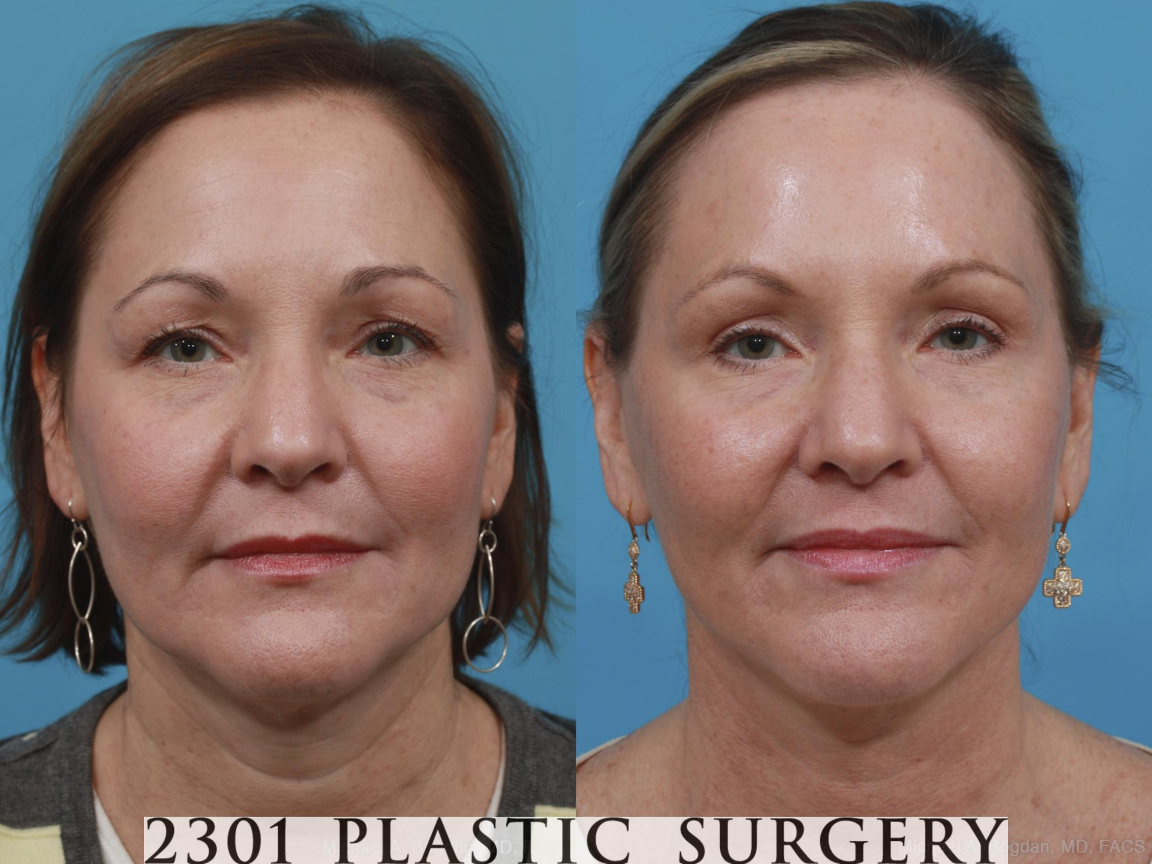Neck Lift Case 406 Before & After View #1 | Fort Worth & Frisco, Texas | Michael A. Bogdan, MD, FACS
