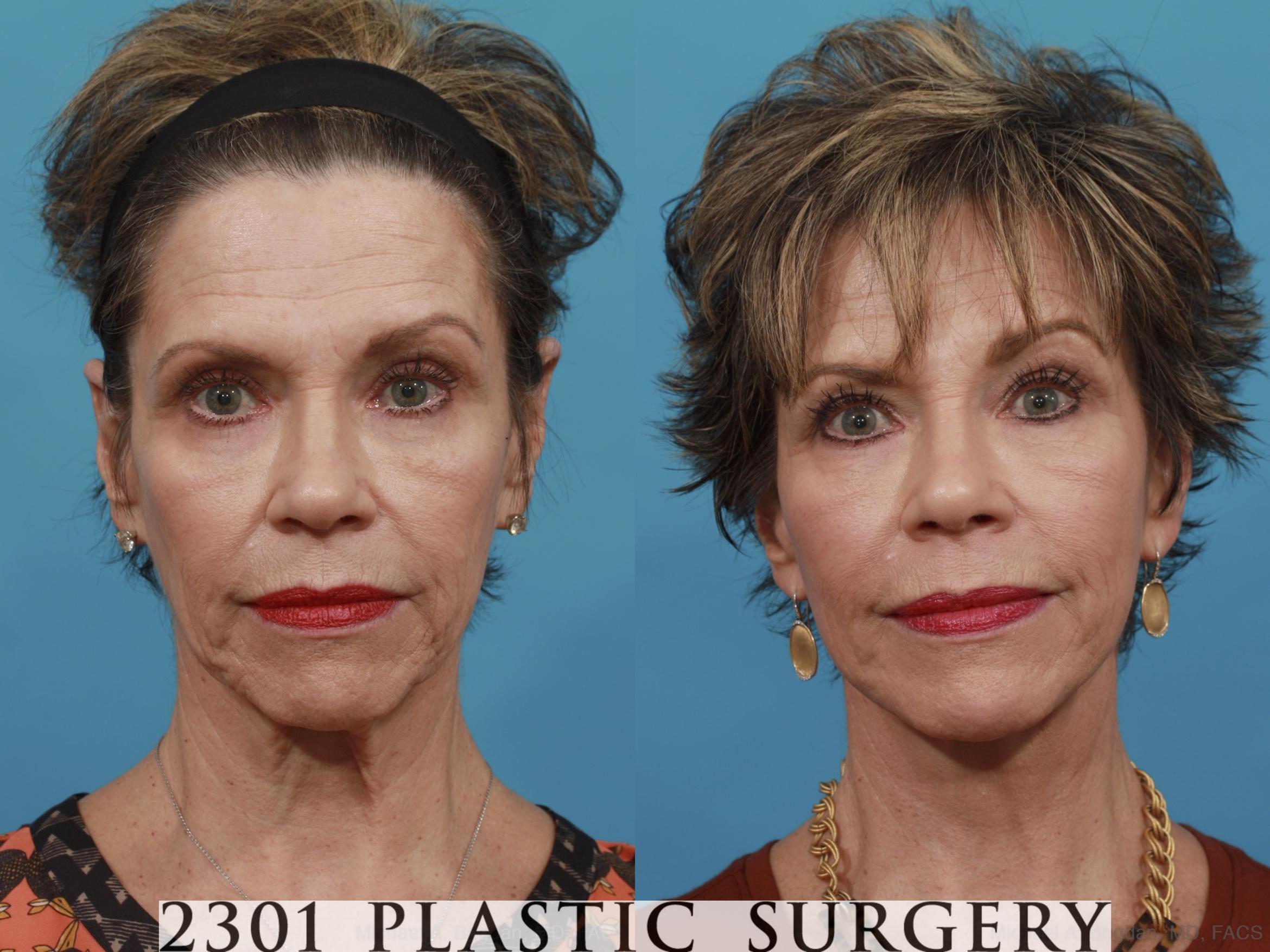 Neck Lift Case 550 Before & After View #1 | Southlake, Texas | Michael A. Bogdan, MD, FACS