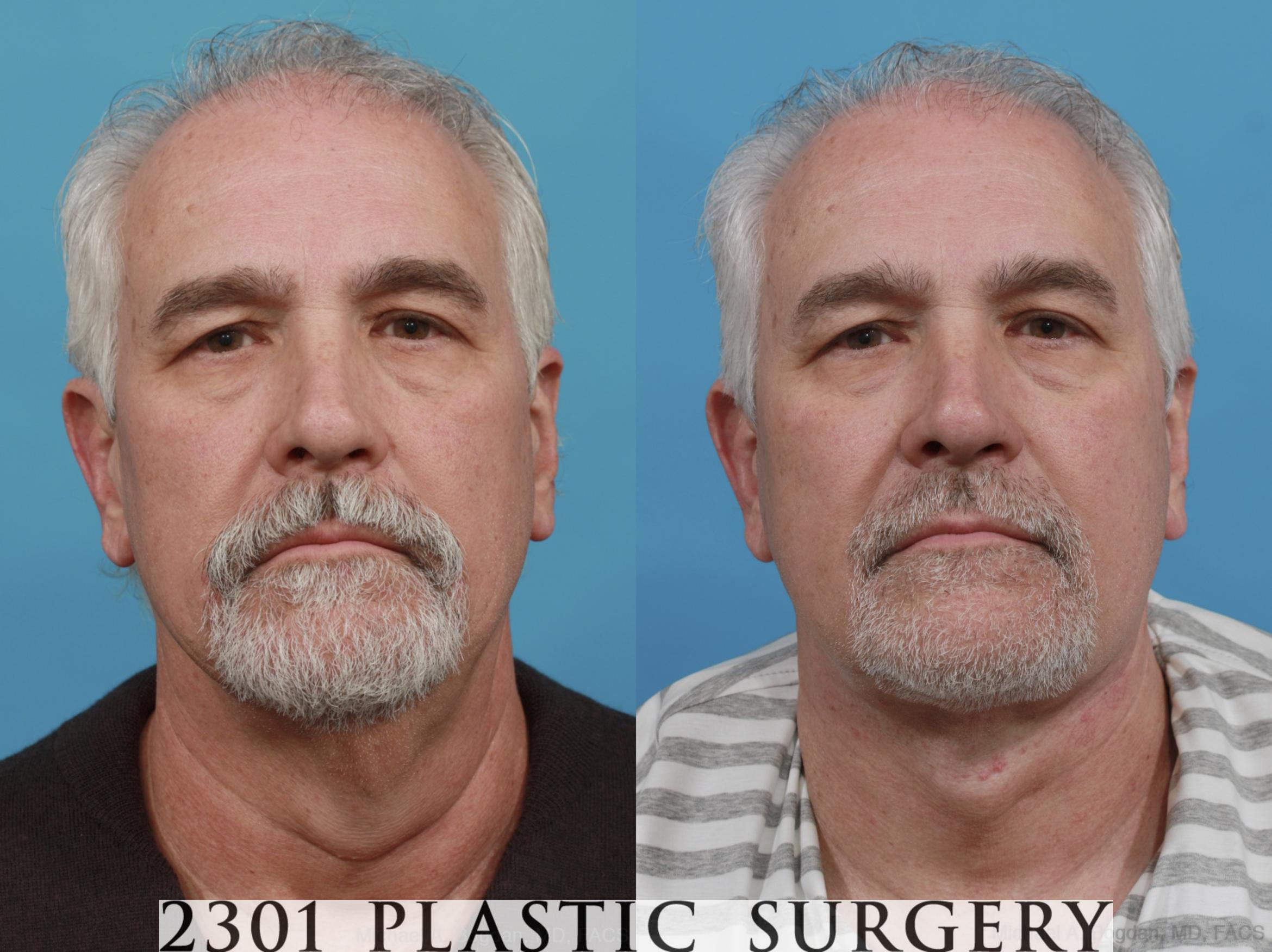Neck Lift Case 581 Before & After View #1 | Southlake, Texas | Michael A. Bogdan, MD, FACS