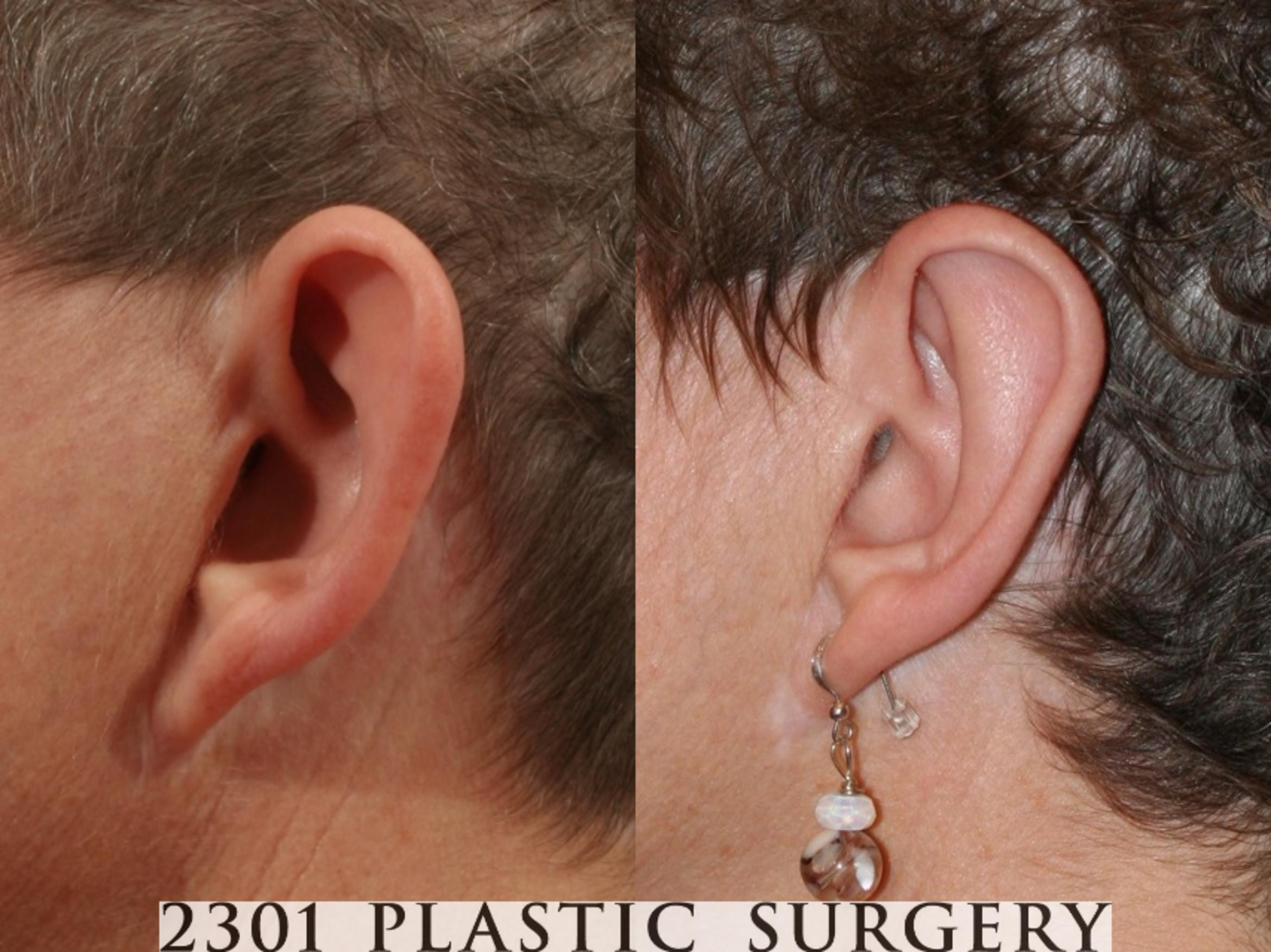 Otoplasty Case 47 Before & After View #1 | Fort Worth & Frisco, Texas | Michael A. Bogdan, MD, FACS