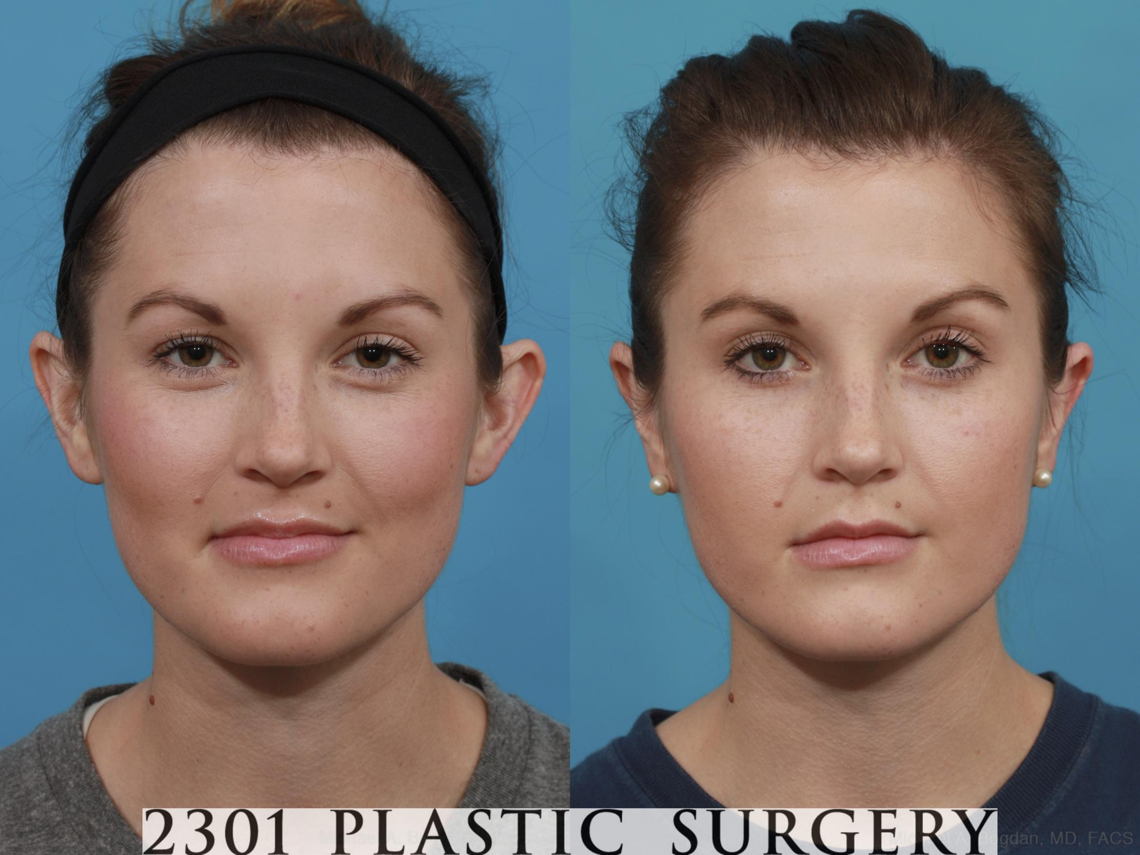 Otoplasty Case 546 Before & After View #1 | Fort Worth & Frisco, Texas | Michael A. Bogdan, MD, FACS