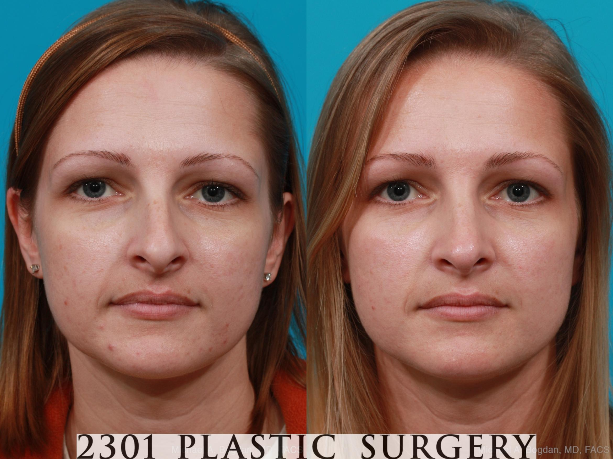 Rhinoplasty Case 181 Before & After View #1 | Fort Worth & Frisco, Texas | Michael A. Bogdan, MD, FACS
