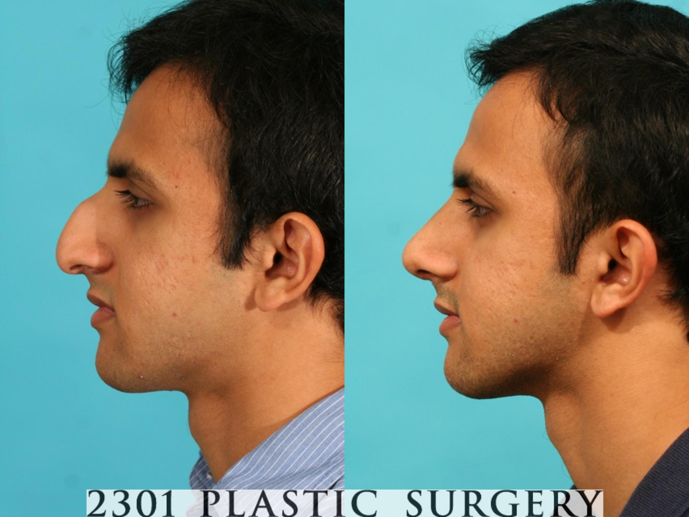 Rhinoplasty Case 53 Before & After View #2 | Fort Worth & Frisco, Texas | Michael A. Bogdan, MD, FACS