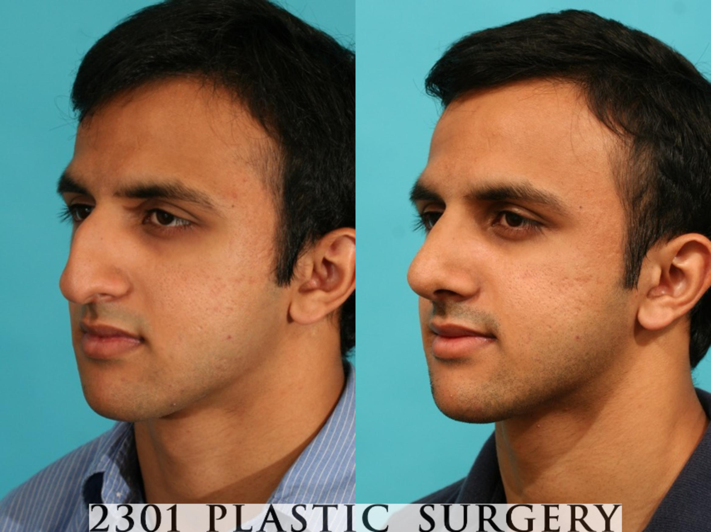 Rhinoplasty Case 53 Before & After View #3 | Fort Worth & Frisco, Texas | Michael A. Bogdan, MD, FACS
