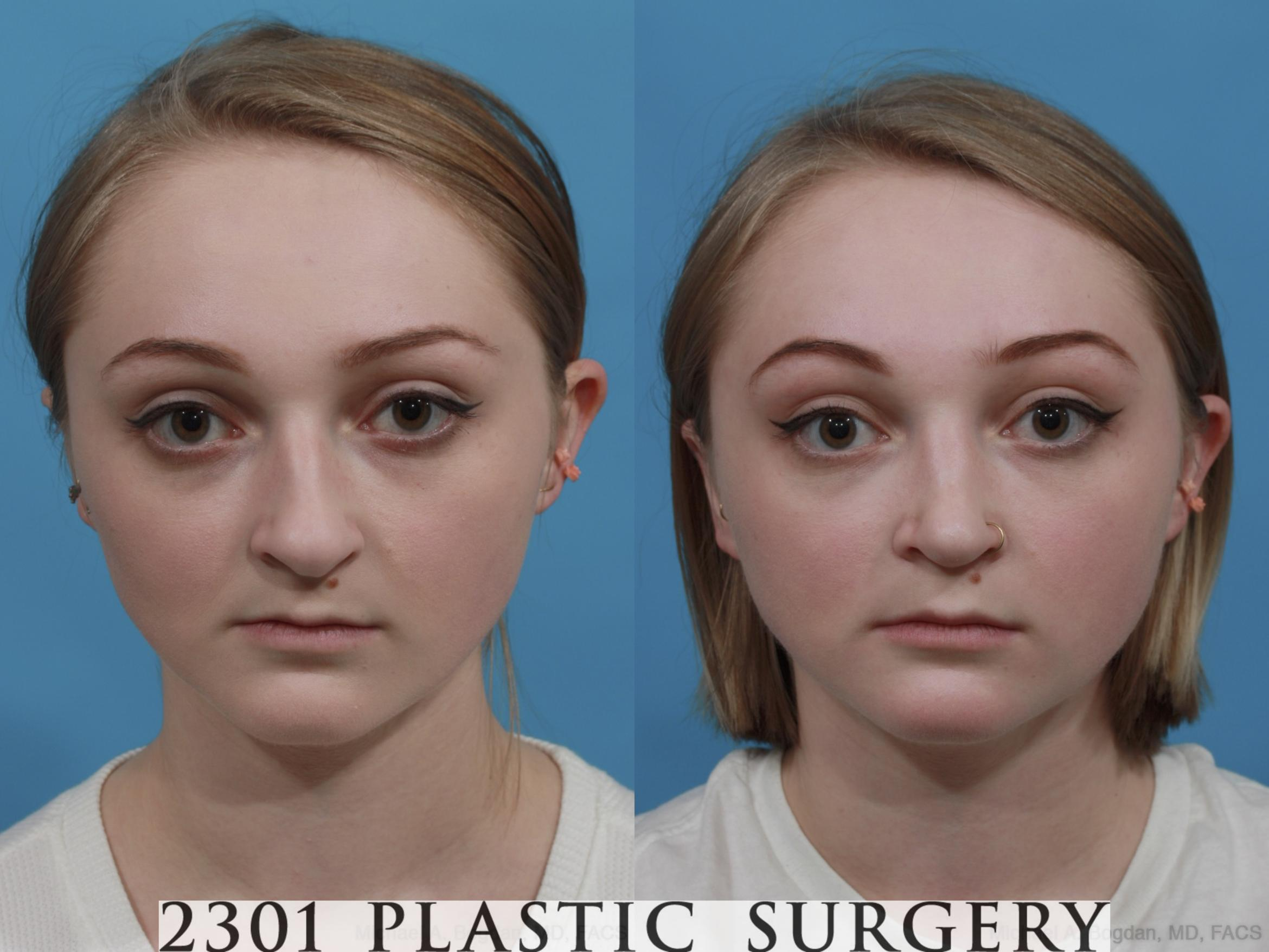 Rhinoplasty Case 571 Before & After View #1 | Fort Worth & Frisco, Texas | Michael A. Bogdan, MD, FACS