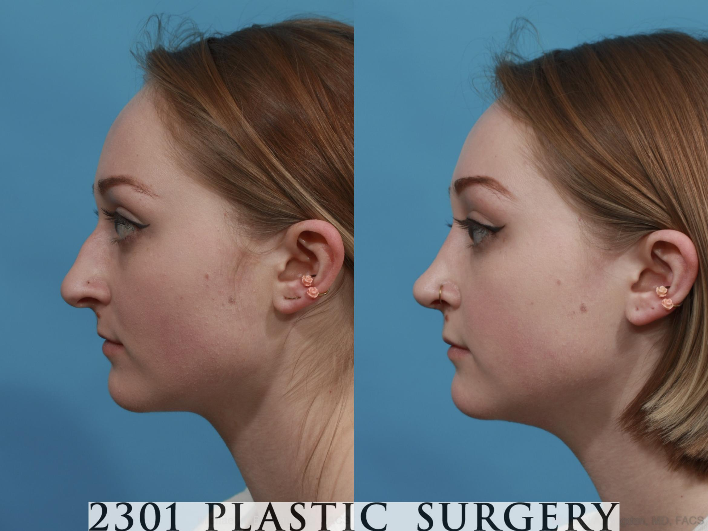 Rhinoplasty Case 571 Before & After View #2 | Fort Worth & Frisco, Texas | Michael A. Bogdan, MD, FACS